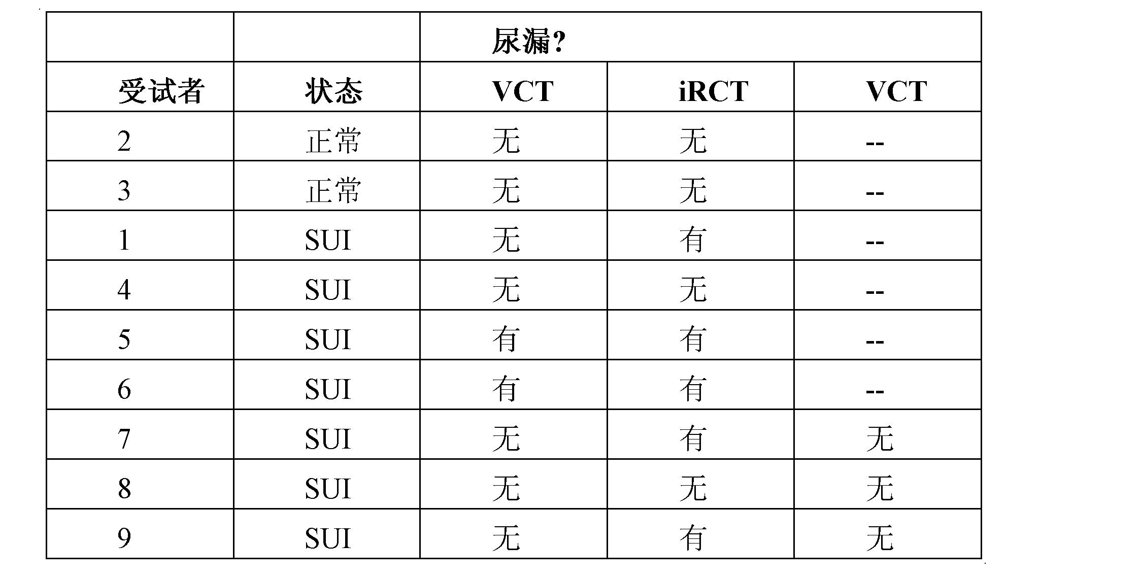使用非自主性反射性咳嗽试验评价压力性尿失禁(sui)