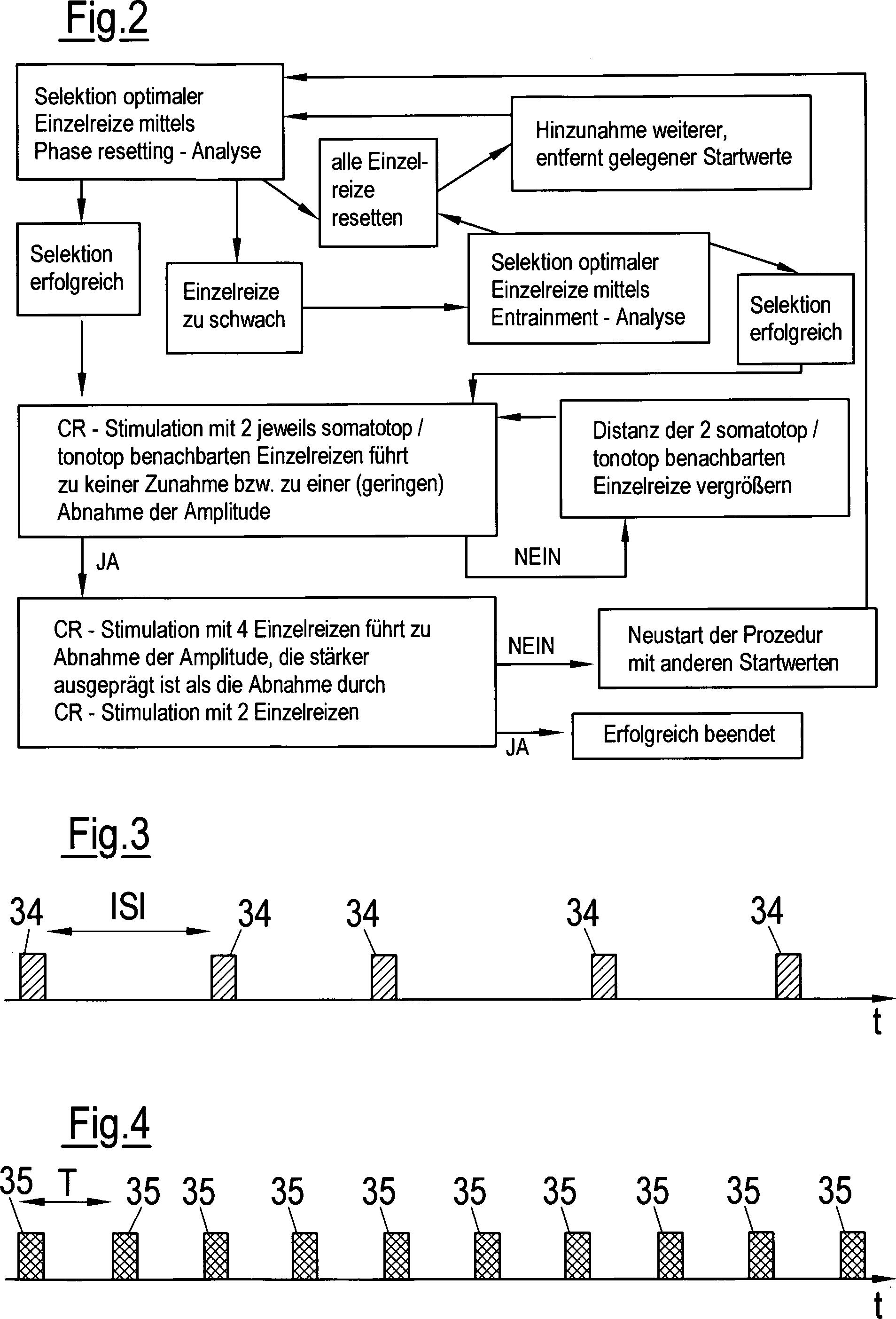 Stahlbandschneider und nicht Patent