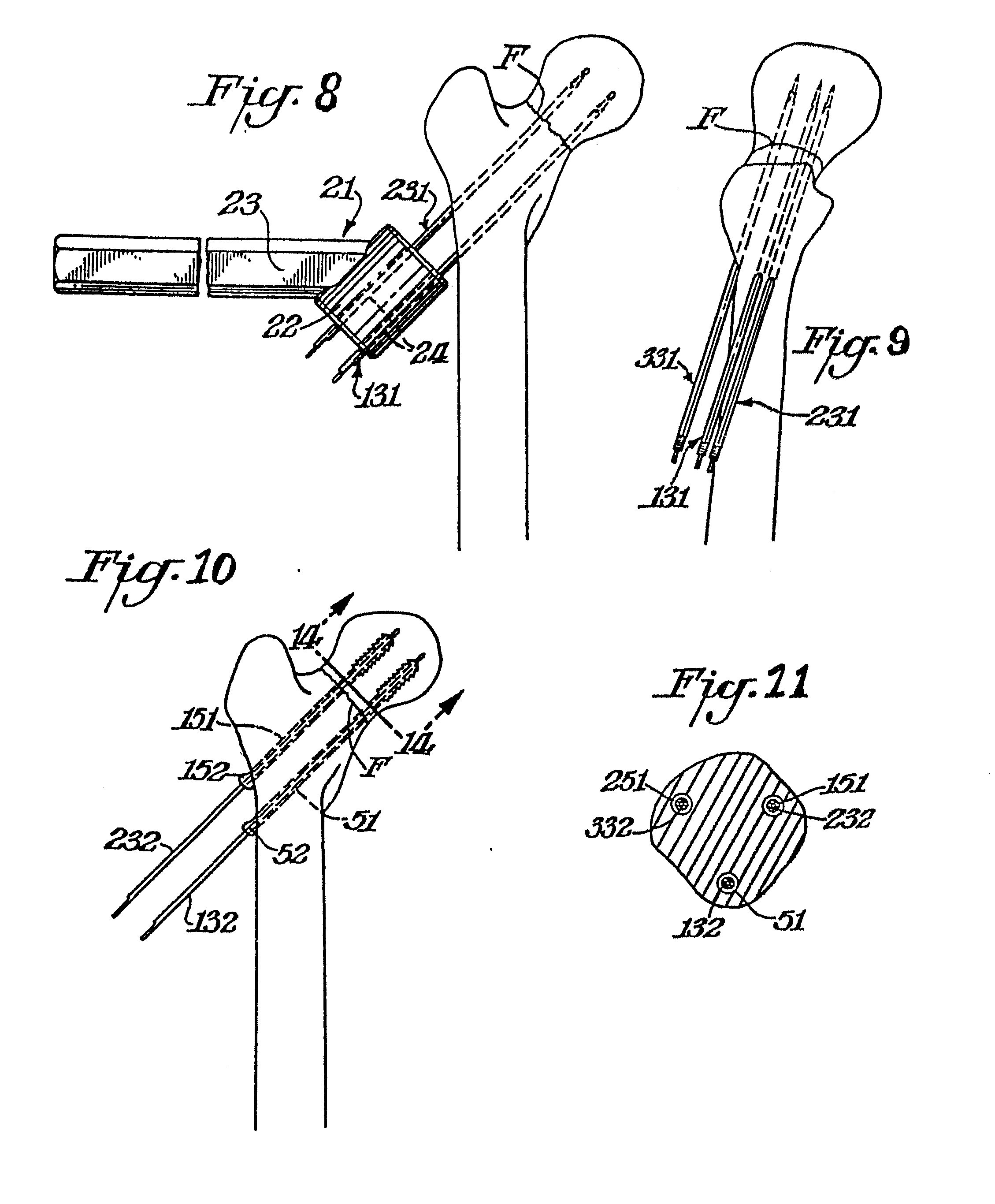 patent ep0134514a2 surgical guide pin sleeve combination patents