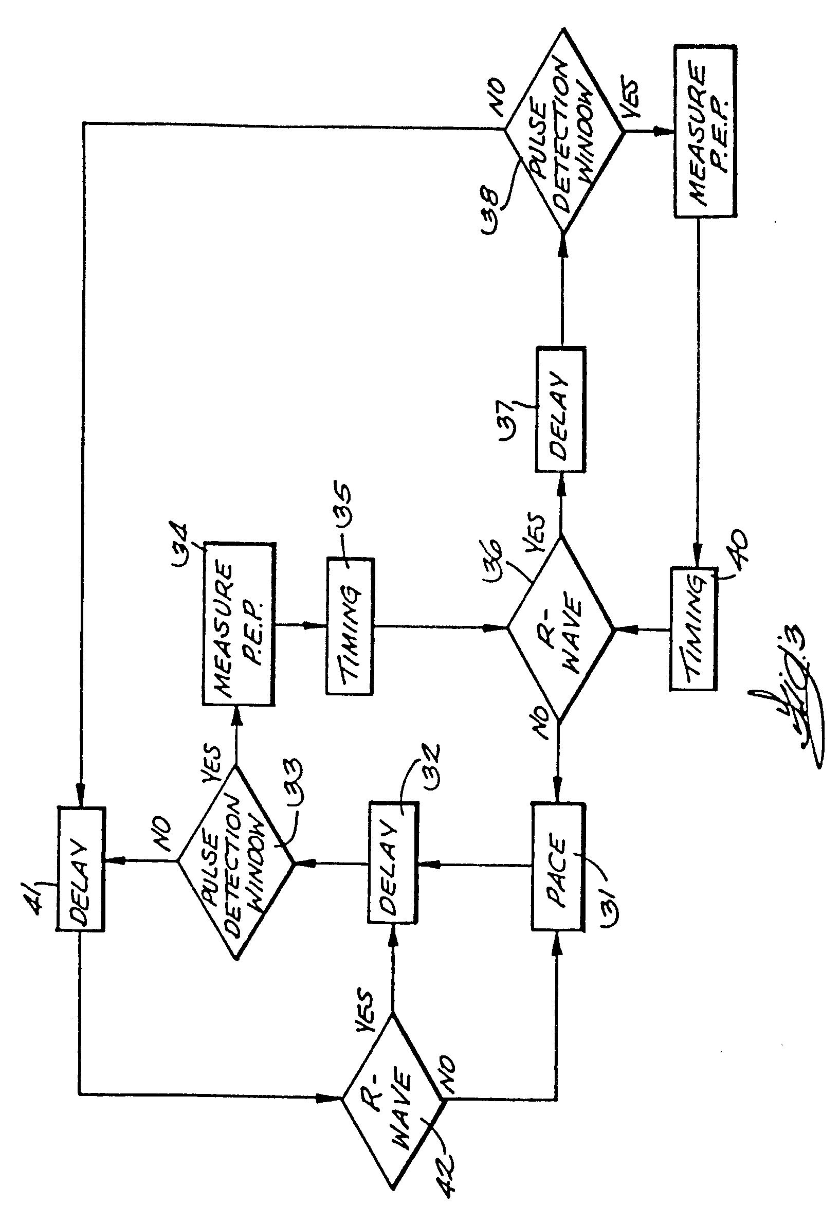 pacemaker circuit diagram  u2013 the wiring diagram