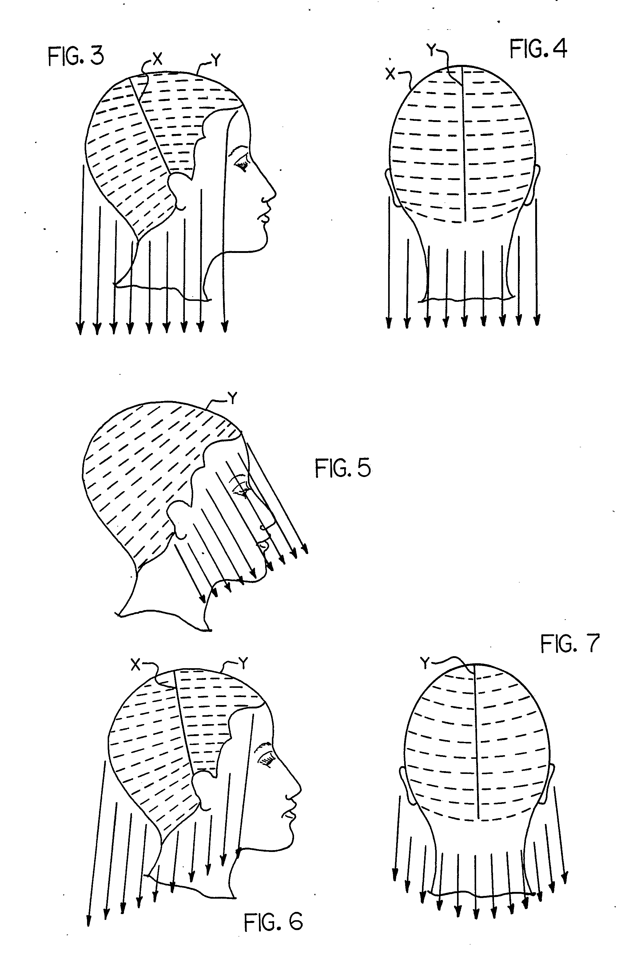patent ep0311874a1