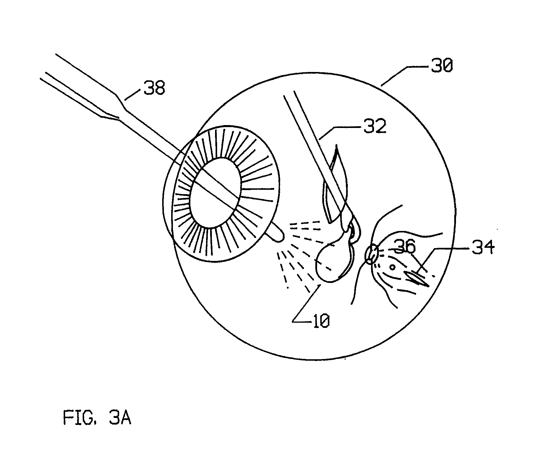 patent ep0460320a2 - artificial retina device