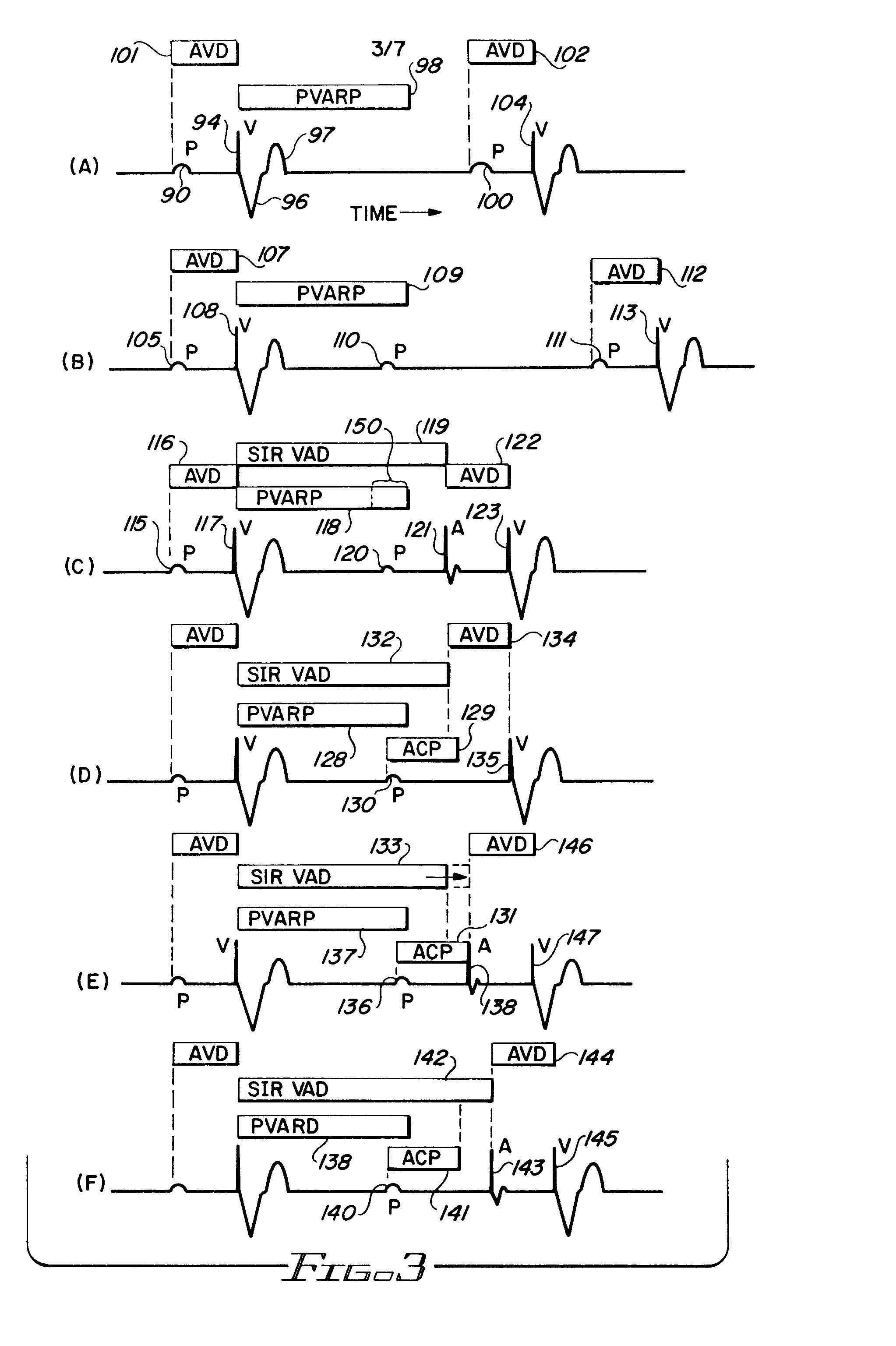 ... Blank Heart Diagram , Blank Digestive System Diagram , Blank