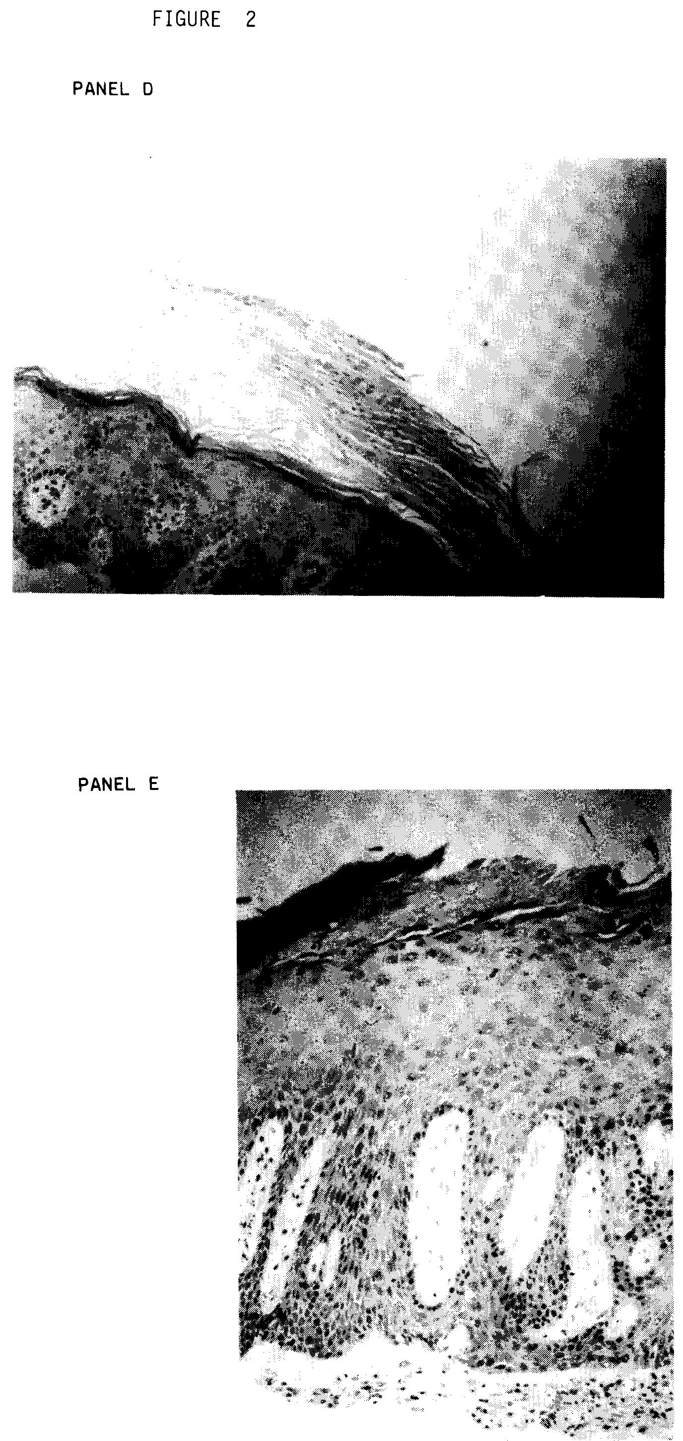 Pentoxifylline Topical Cream