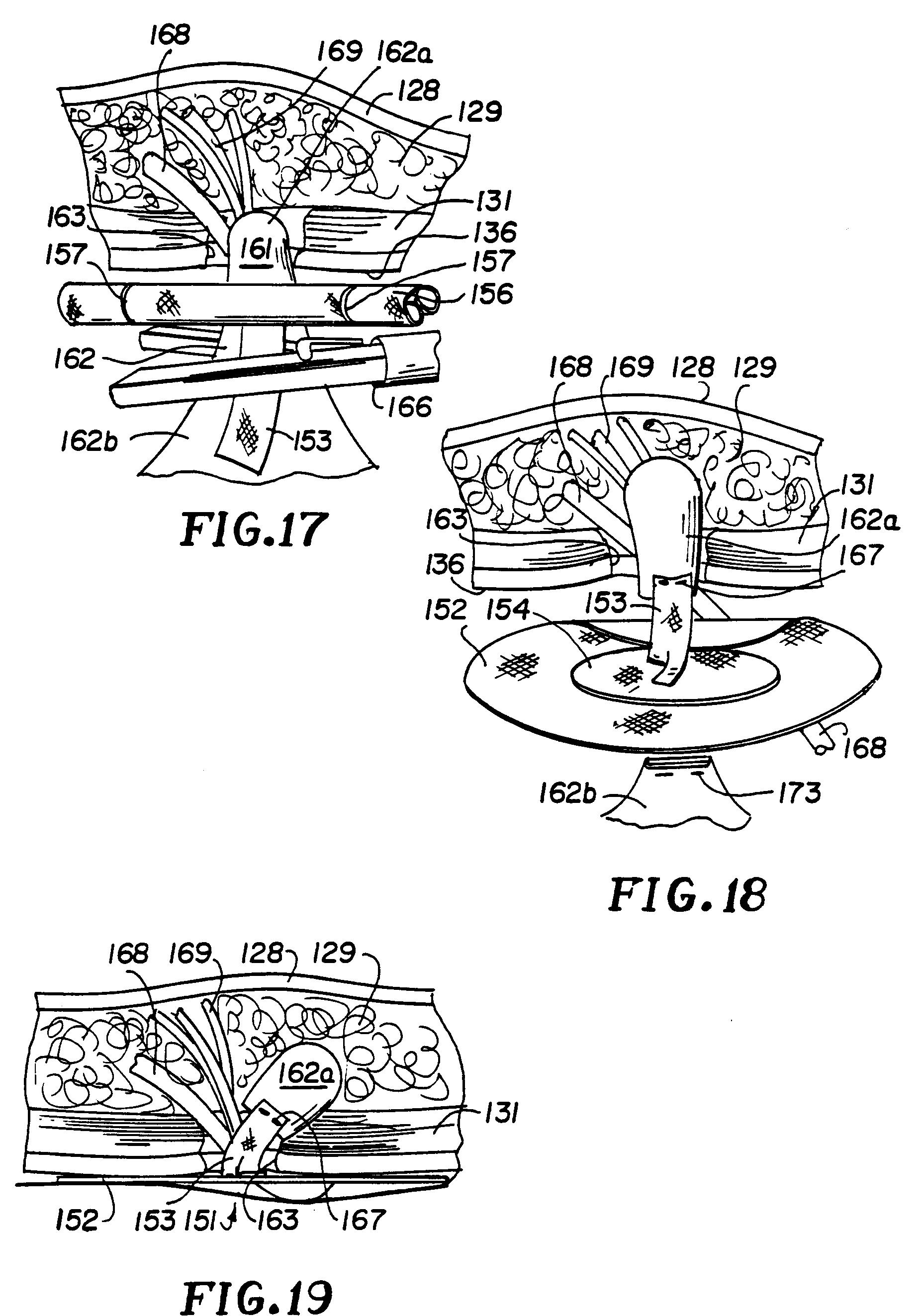patent ep0573273a2 ger t und verfahren zur erzeugung eines anatomischen hohlraums f r die. Black Bedroom Furniture Sets. Home Design Ideas
