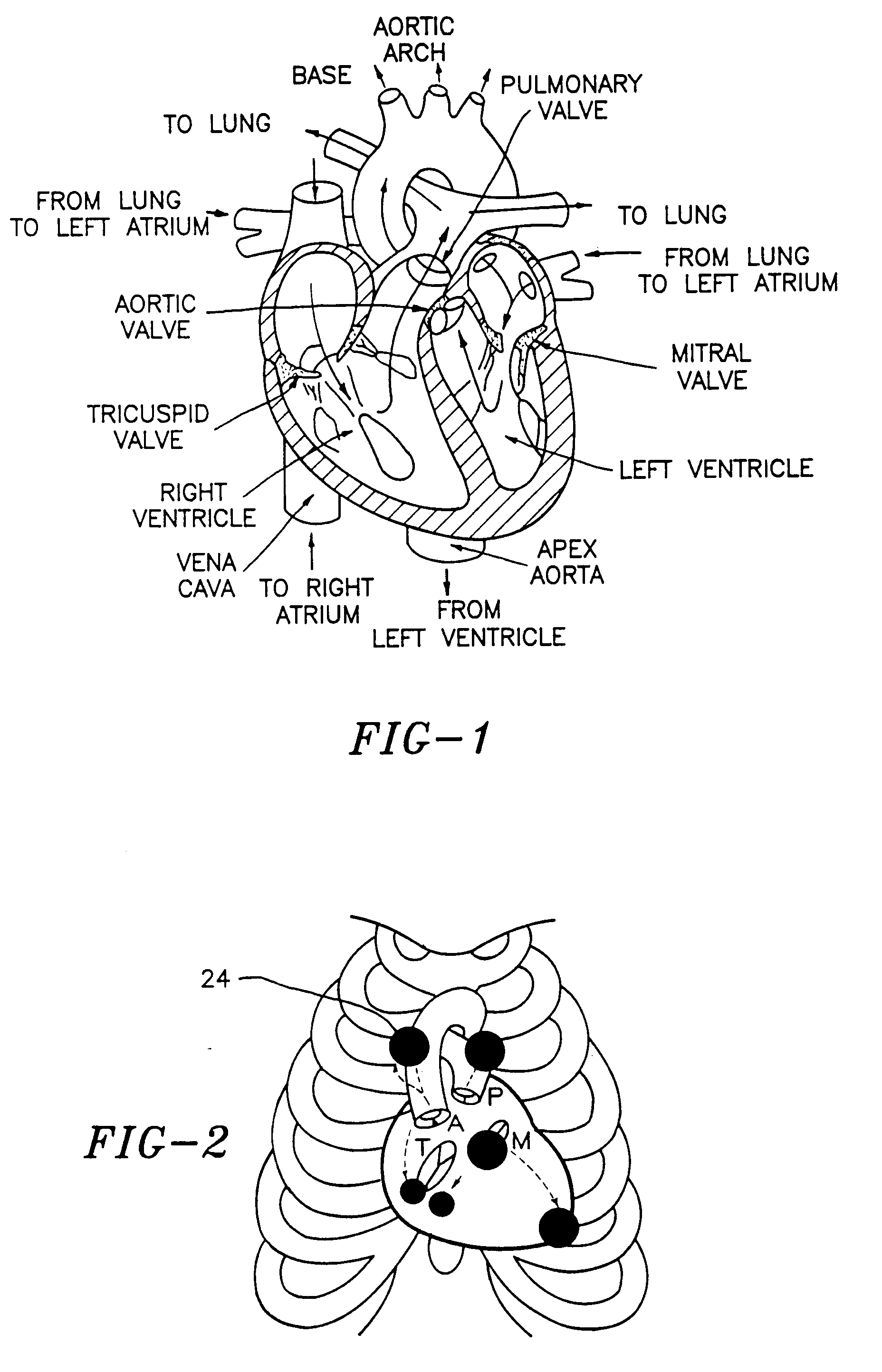 patent ep0645981b1