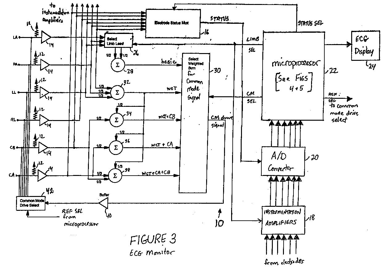 easy lead ecg diagram