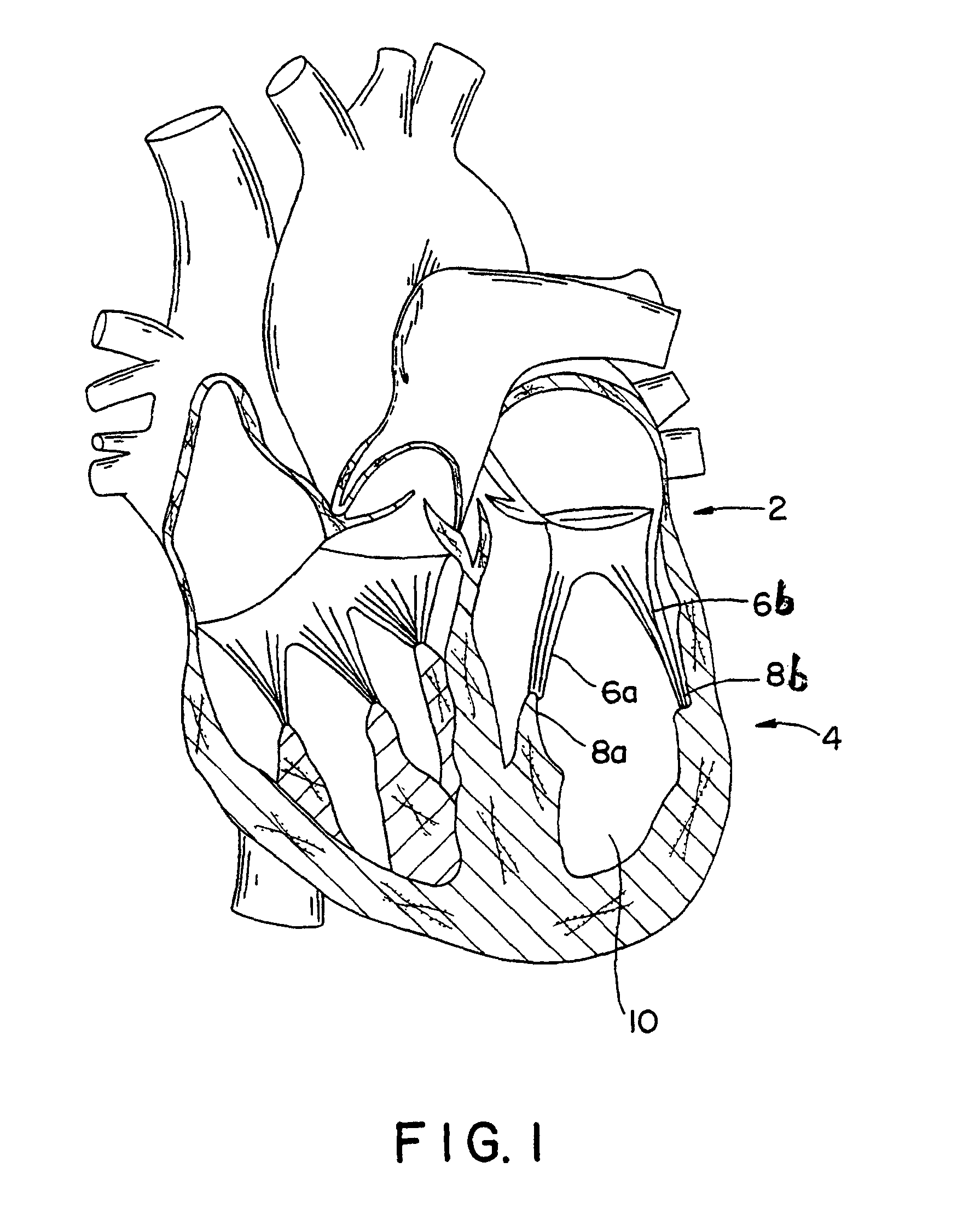 Patent Drawing Human Heart Drawing Black And White