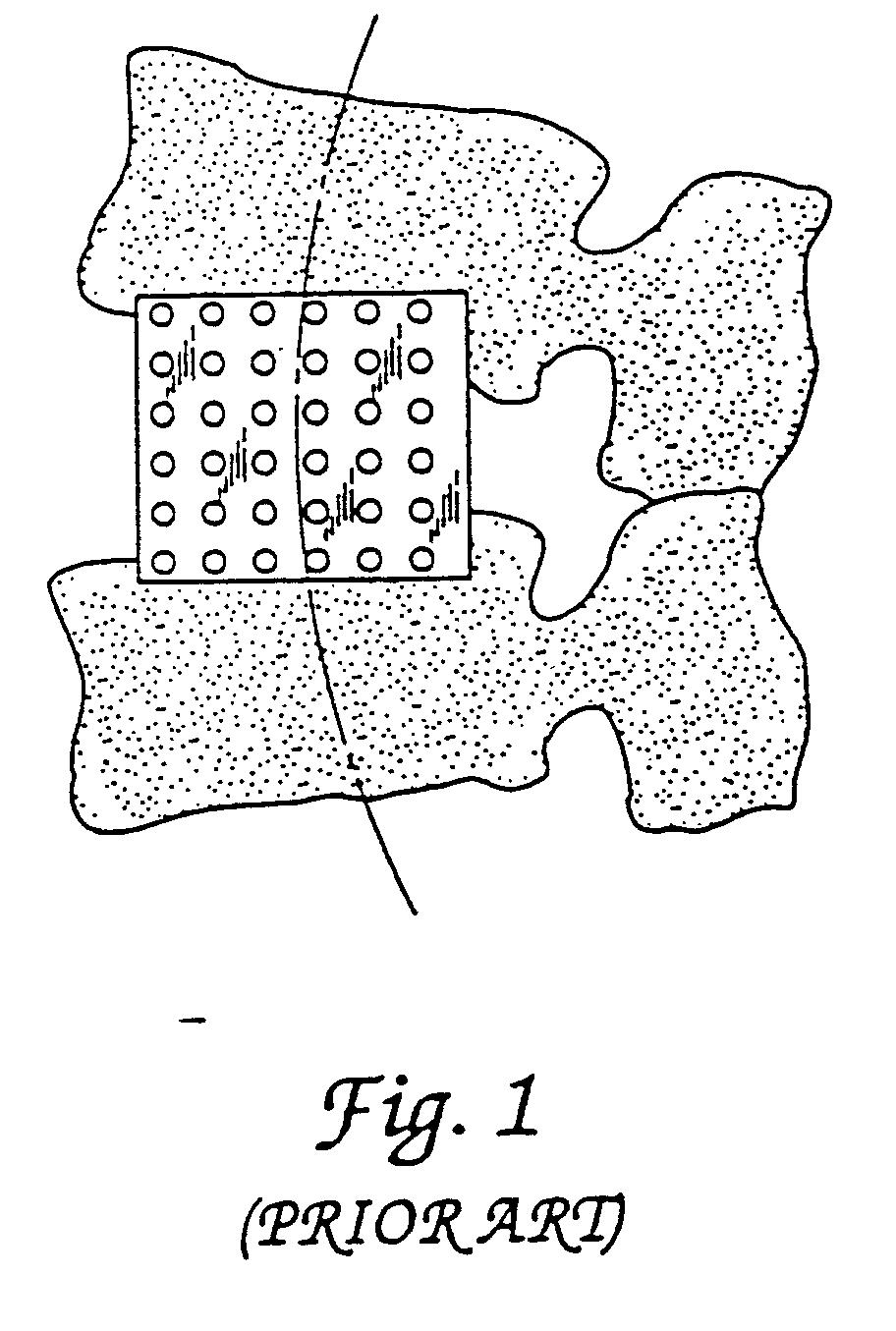 Patent EP1147751A2 - Zwischenwirbelfusionierungseinrichtung und ...
