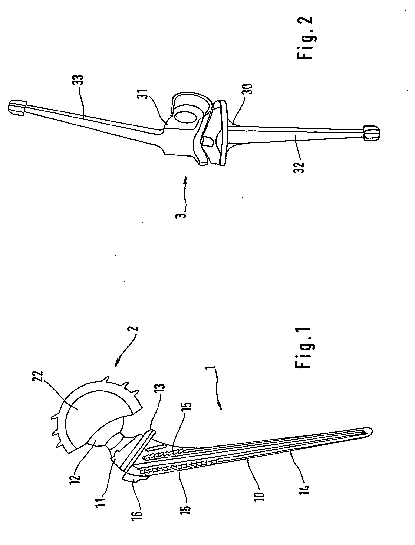 patent ep1850801b1 gelenkprothese aus einer titan. Black Bedroom Furniture Sets. Home Design Ideas