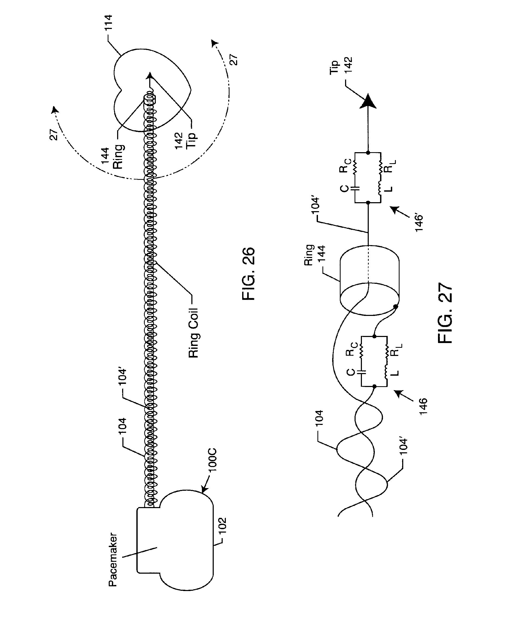 patent ep2165734a2