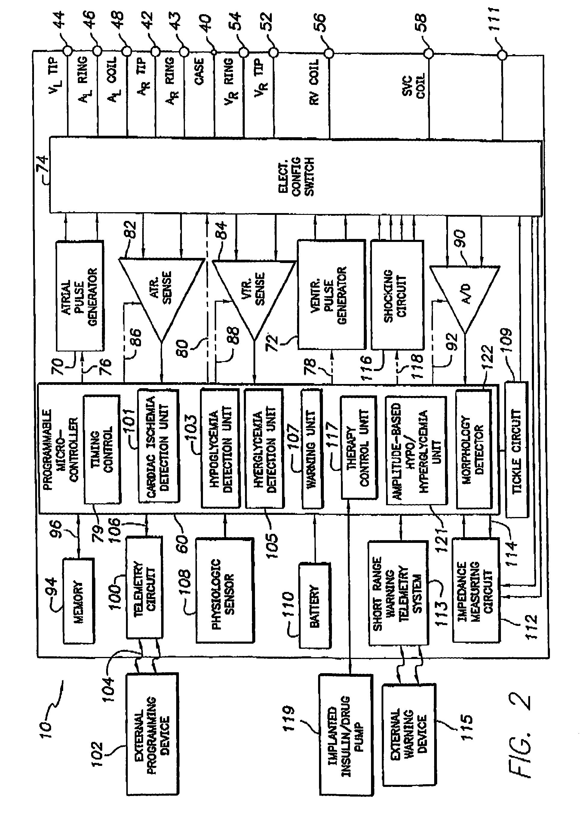 电路 电路图 电子 原理图 1949_2705 竖版 竖屏