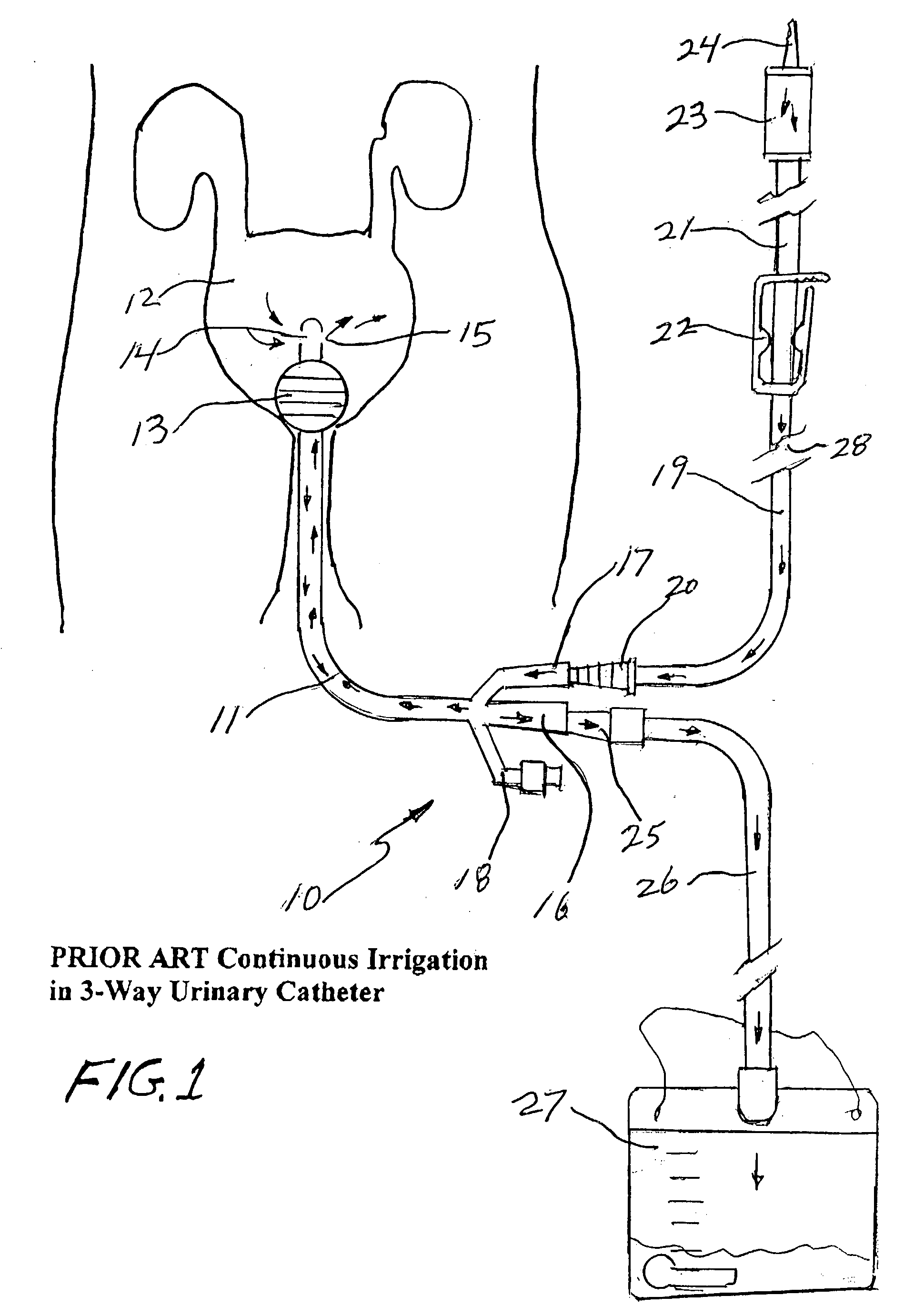 Patent Us20030195478 Closed System Irrigation Connector