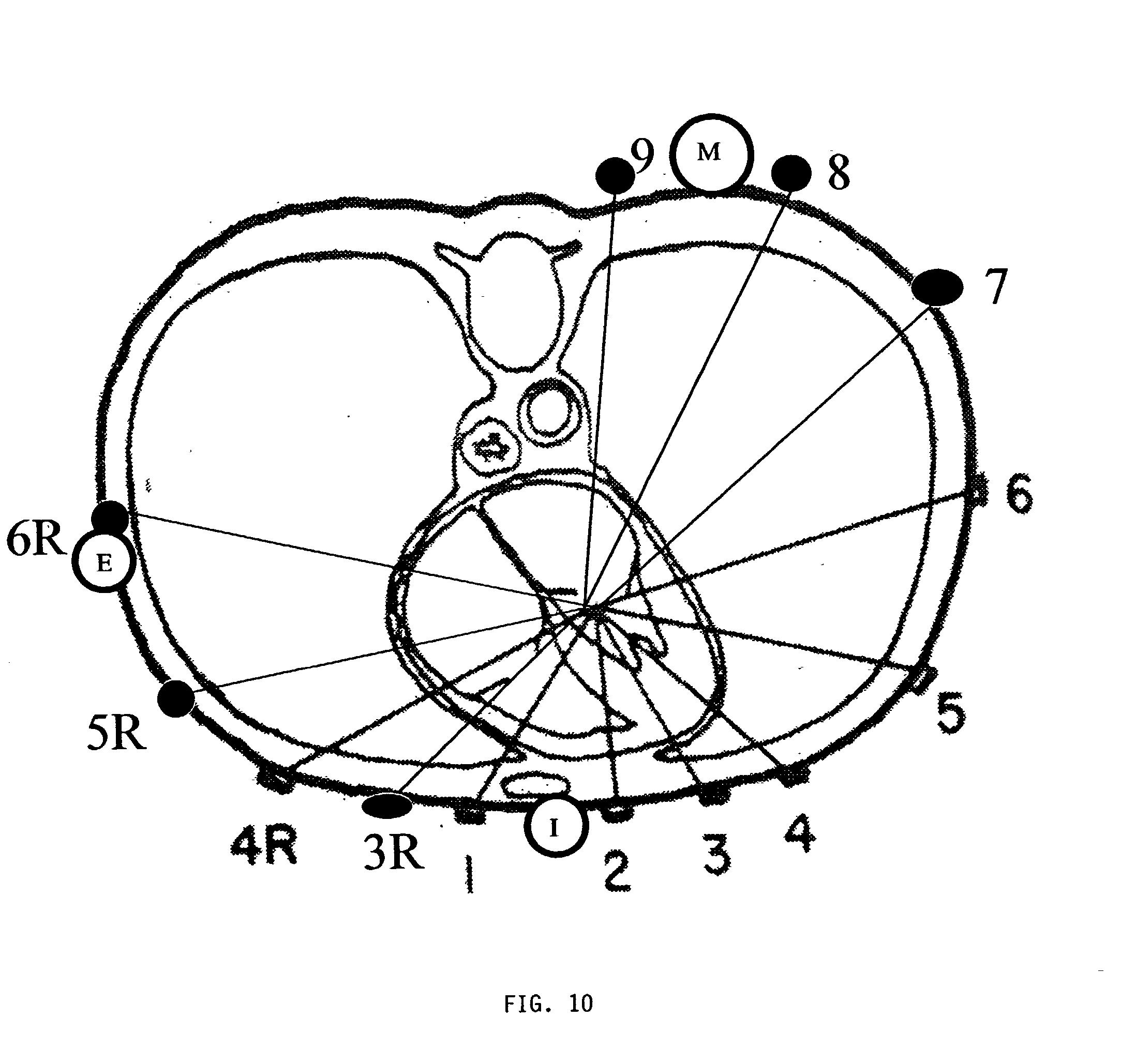 Patent Us20030216655