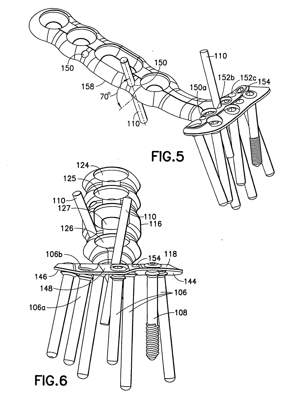 patent us20050065523