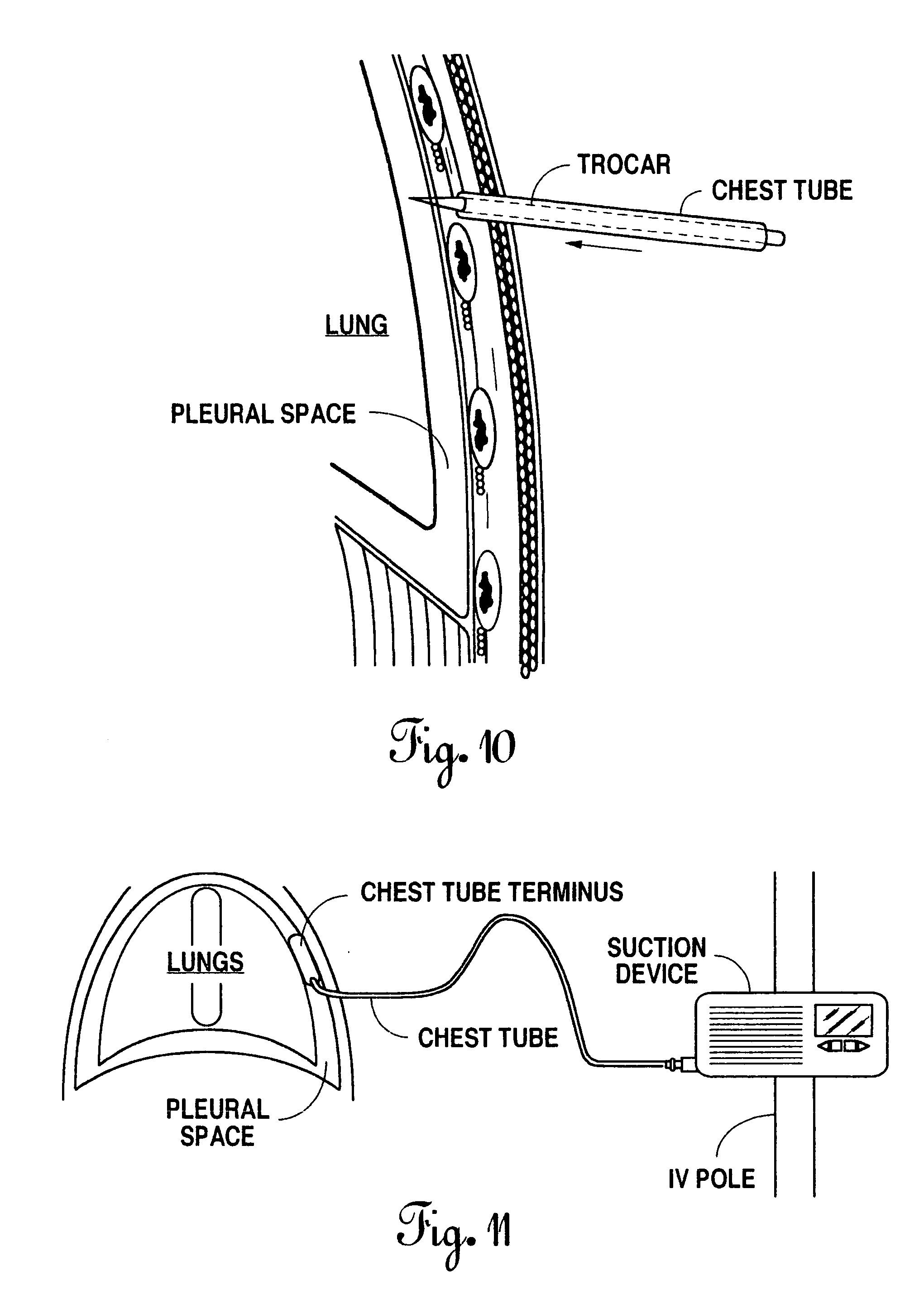 patent us20060036221 - chest tube drainage system