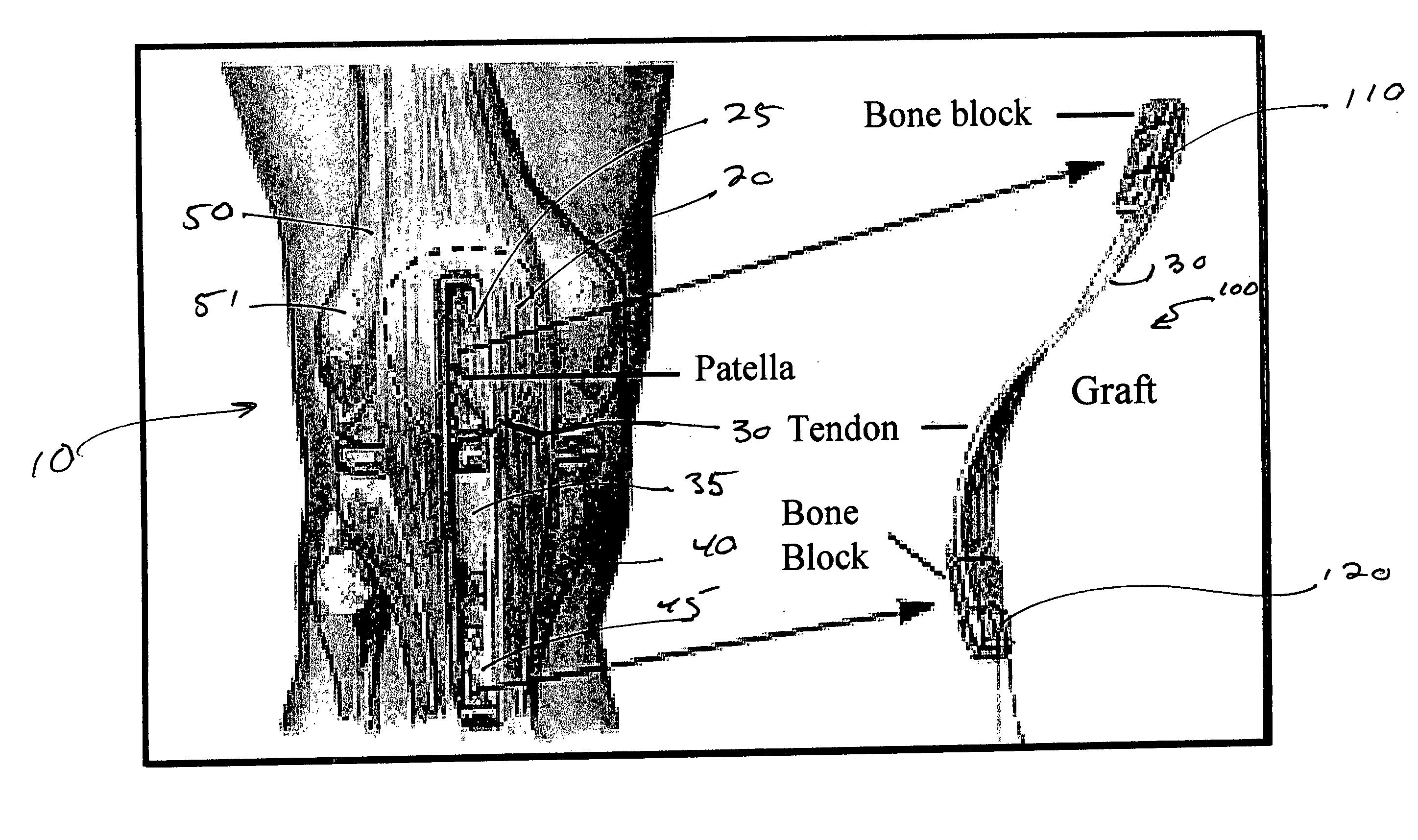 patent us20060067971 - bone void filler