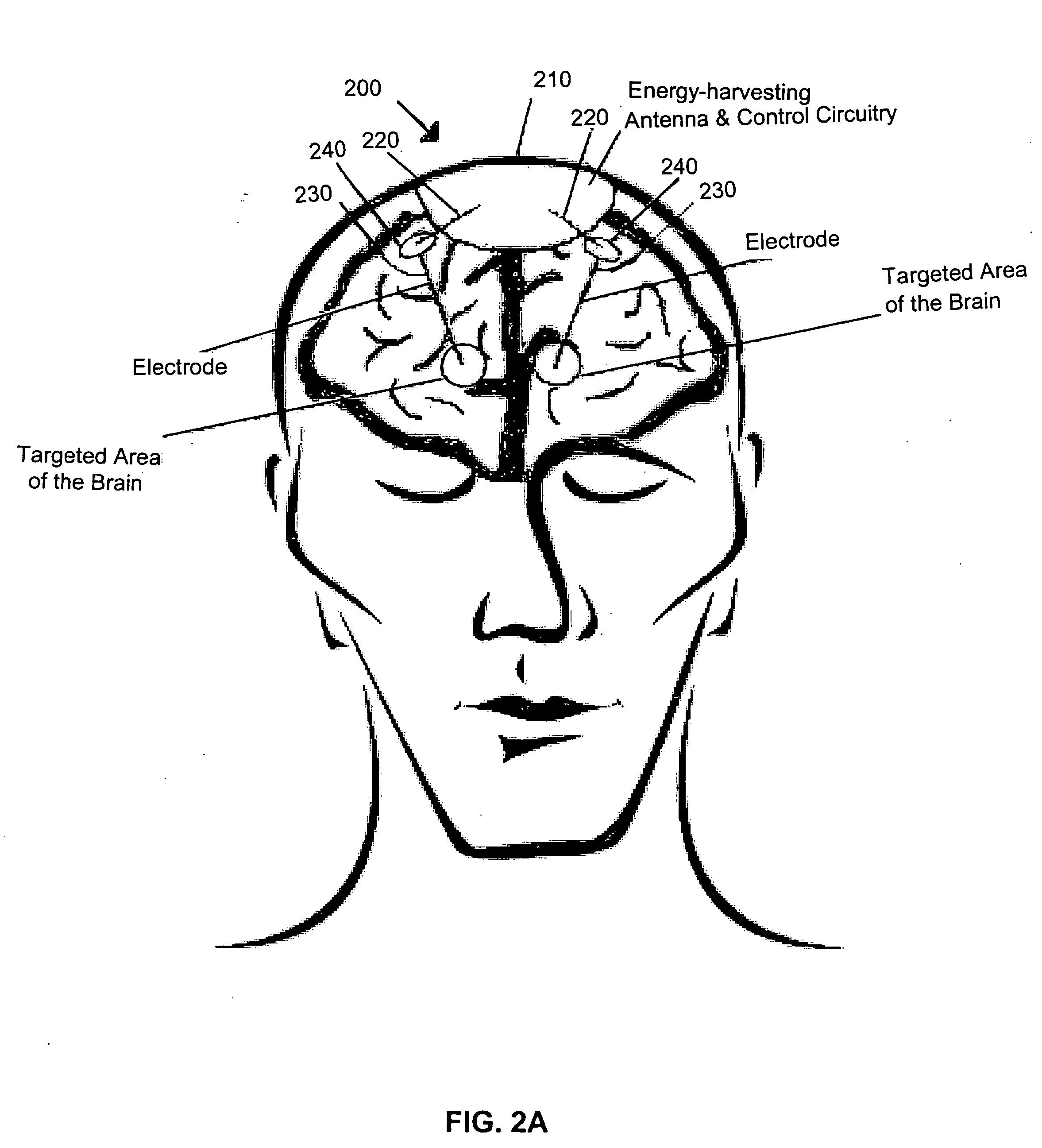 patent us20060184209 - device for brain stimulation using rf energy harvesting