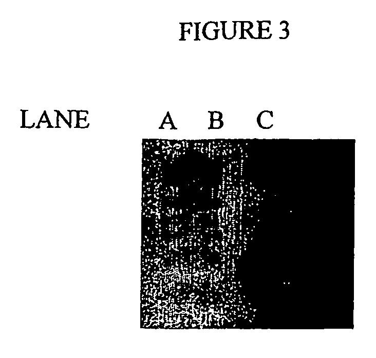 steroid sulfatase gene