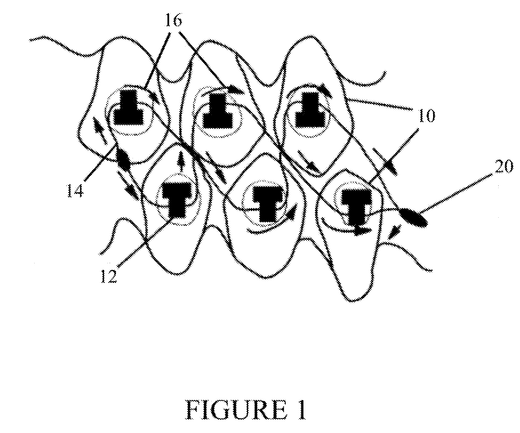 Patent US20070298366 - Orthodontic Jaw Wiring, a fixed intra-oral ...