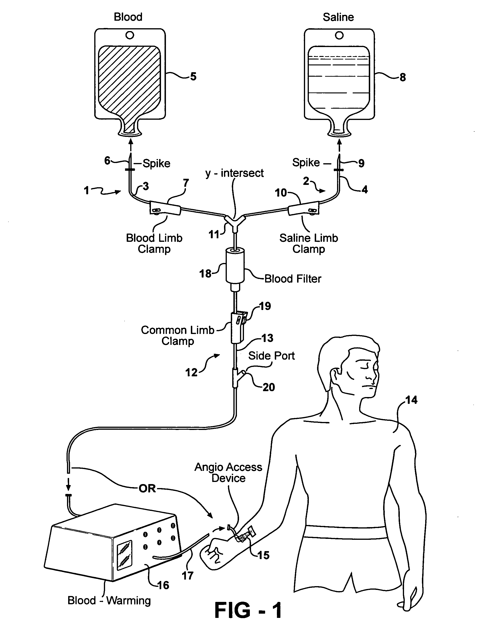 Patent us  y type blood transfusion set