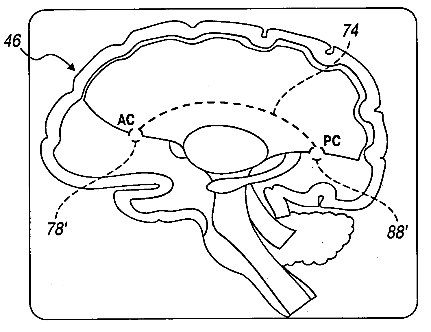 Psychology Brain Anatomy Coloring Page Sketch Coloring Page Brain Anatomy Coloring Pages