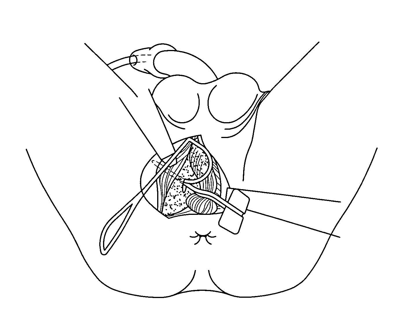 patent us20080210247 surgical technique and tools for use in