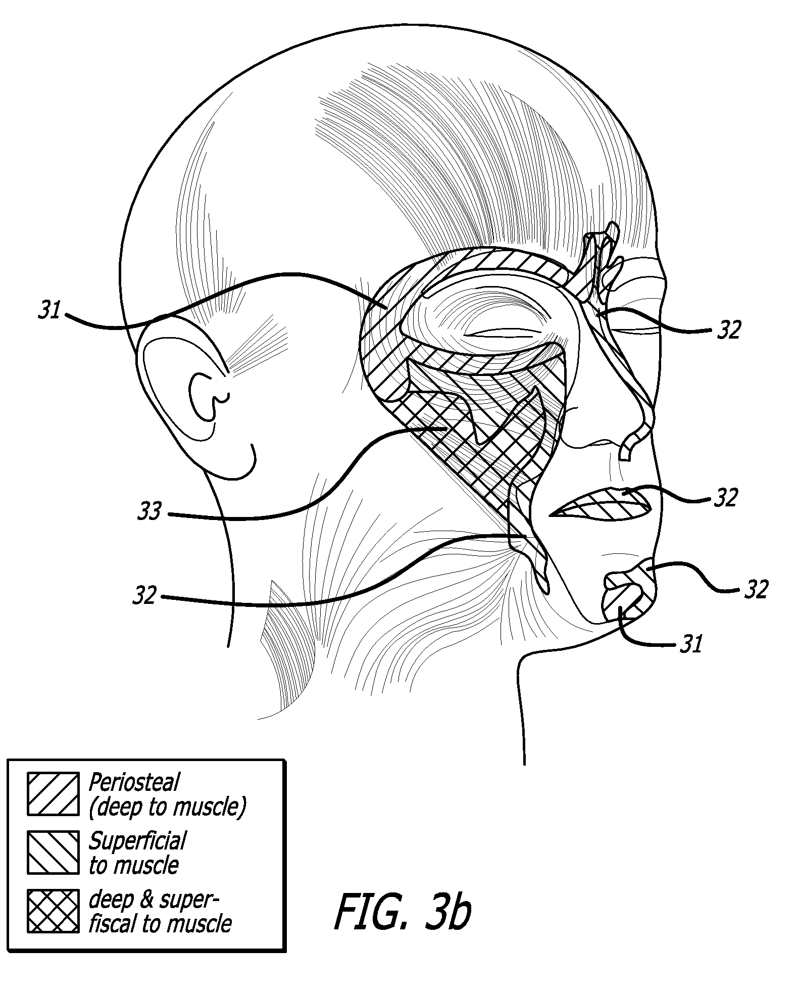 brevet us20090069739 methodology for non surgical facial sculpting Leg Sculpting patent drawing