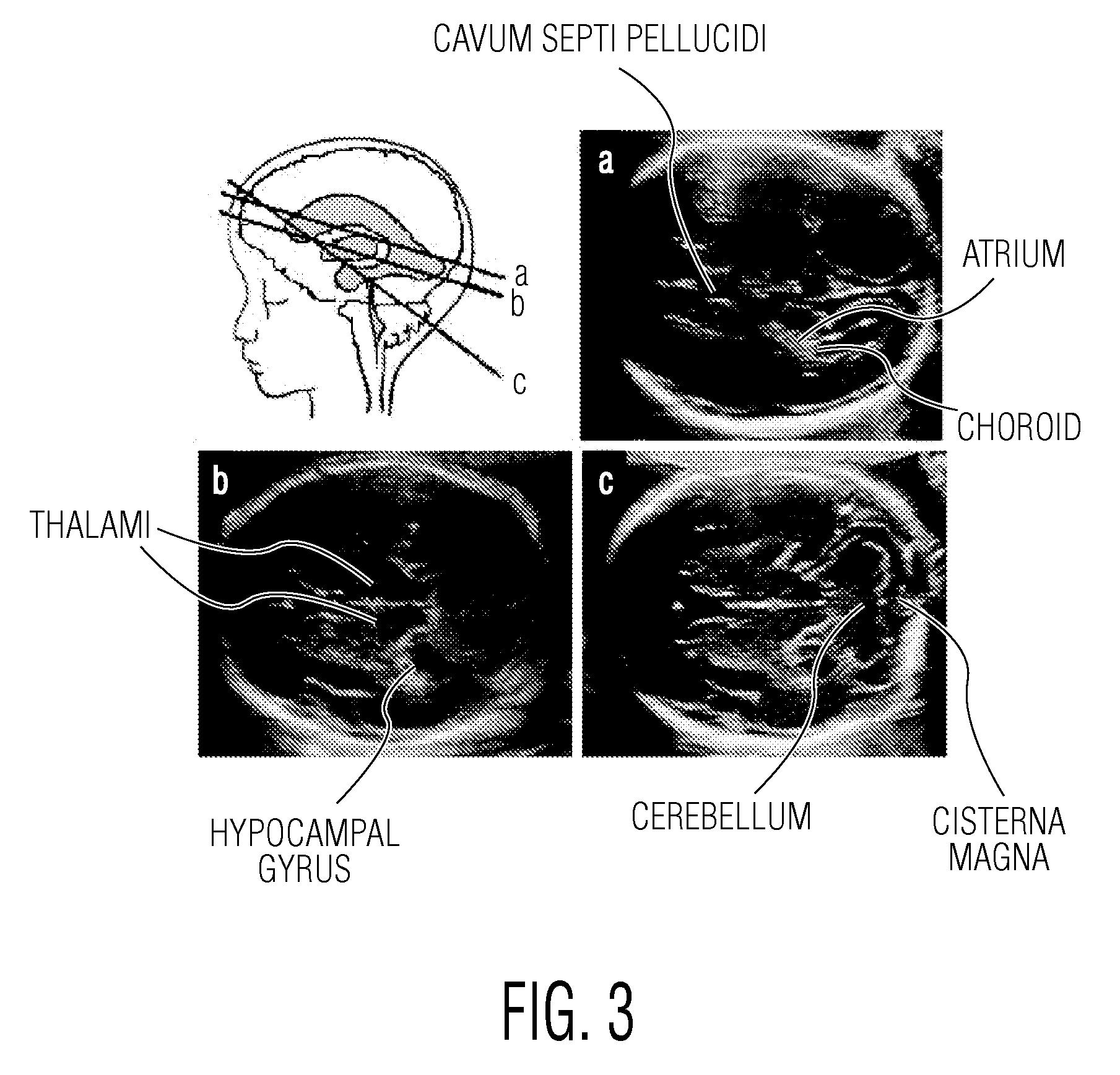 Fetal Head Ultrasound Anatomy