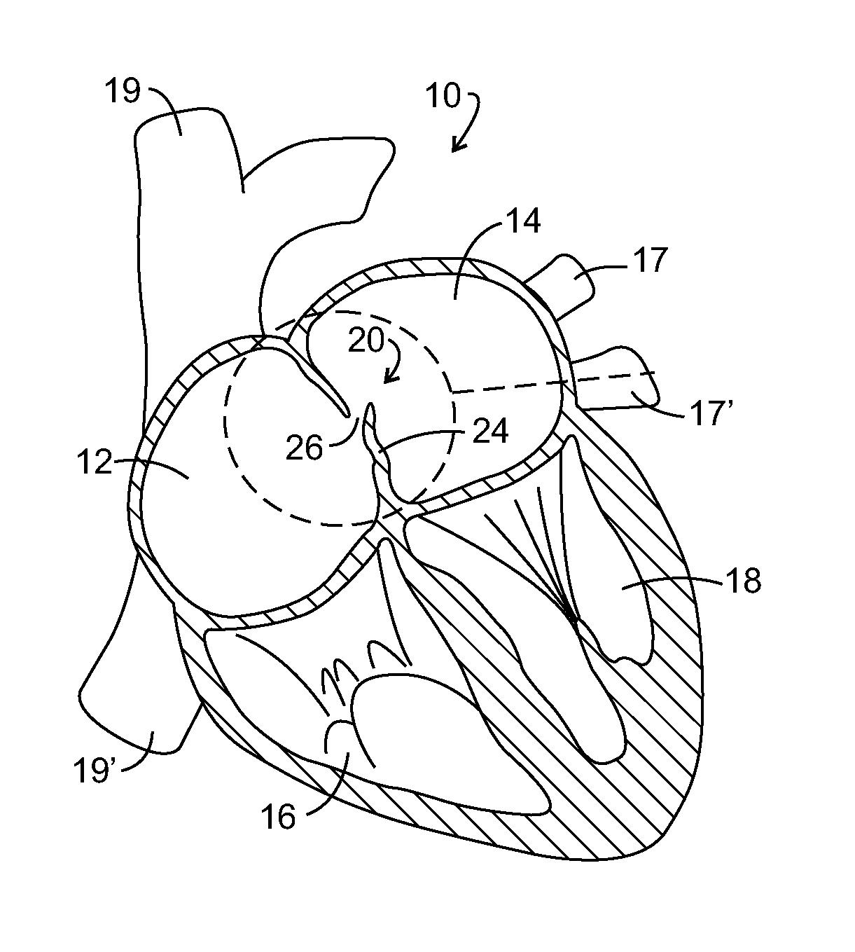 free coloring pages of slugterra greek Circulatory System Coloring Worksheet  Circulatory System Coloring