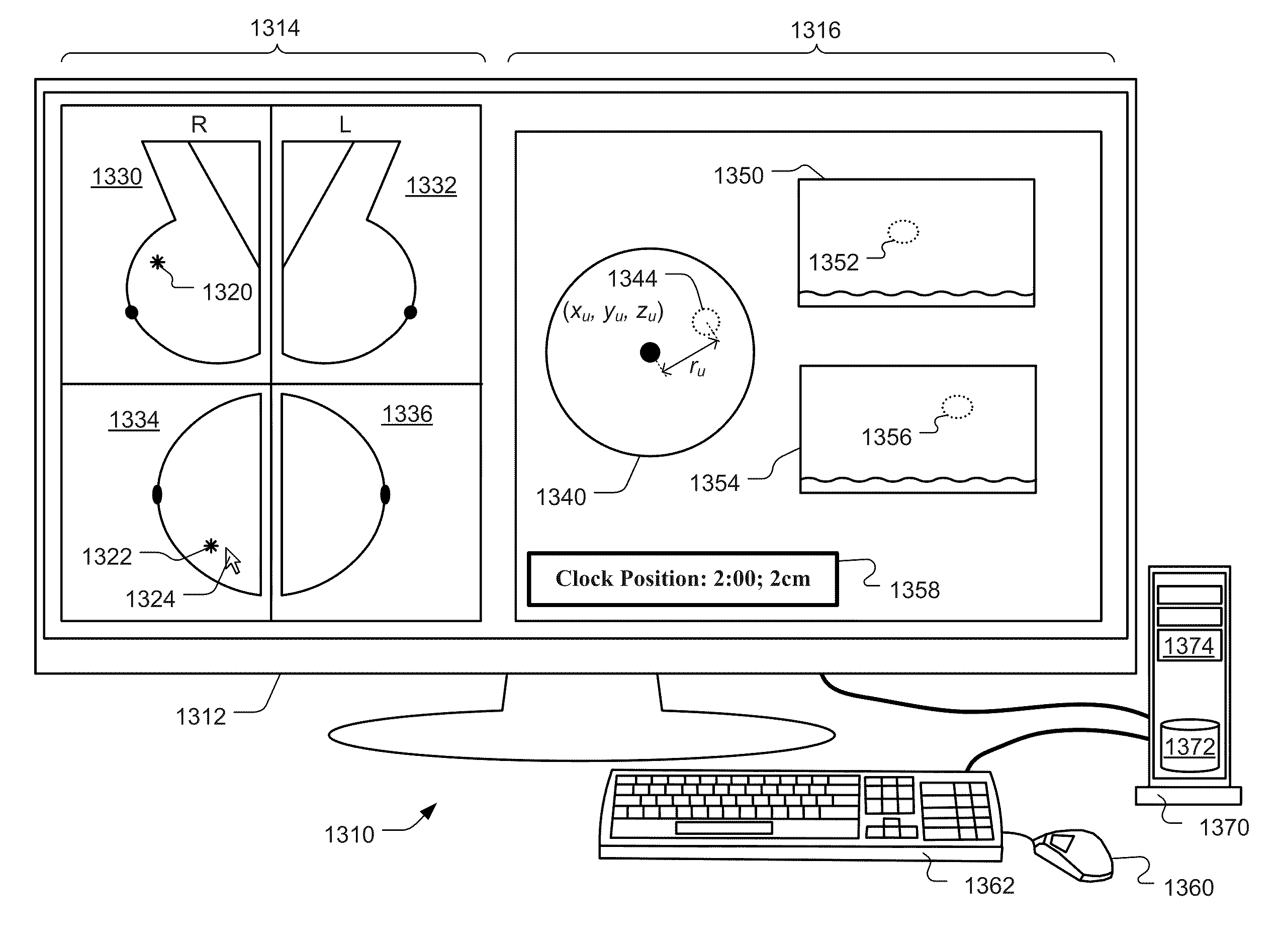 Patent US20120014578 - Computer Aided Detection Of Abnormalities ...