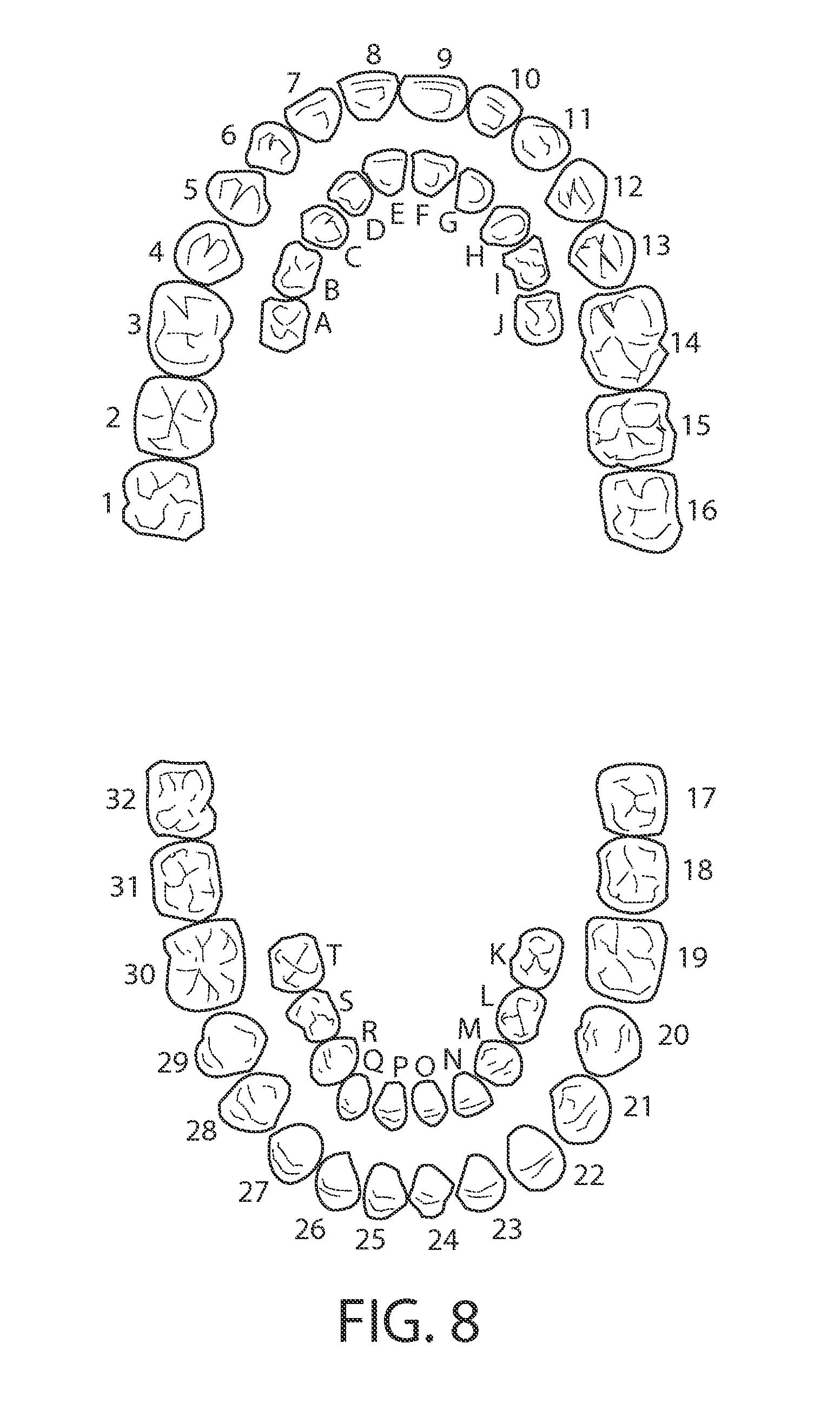dental diagram tooth numbers
