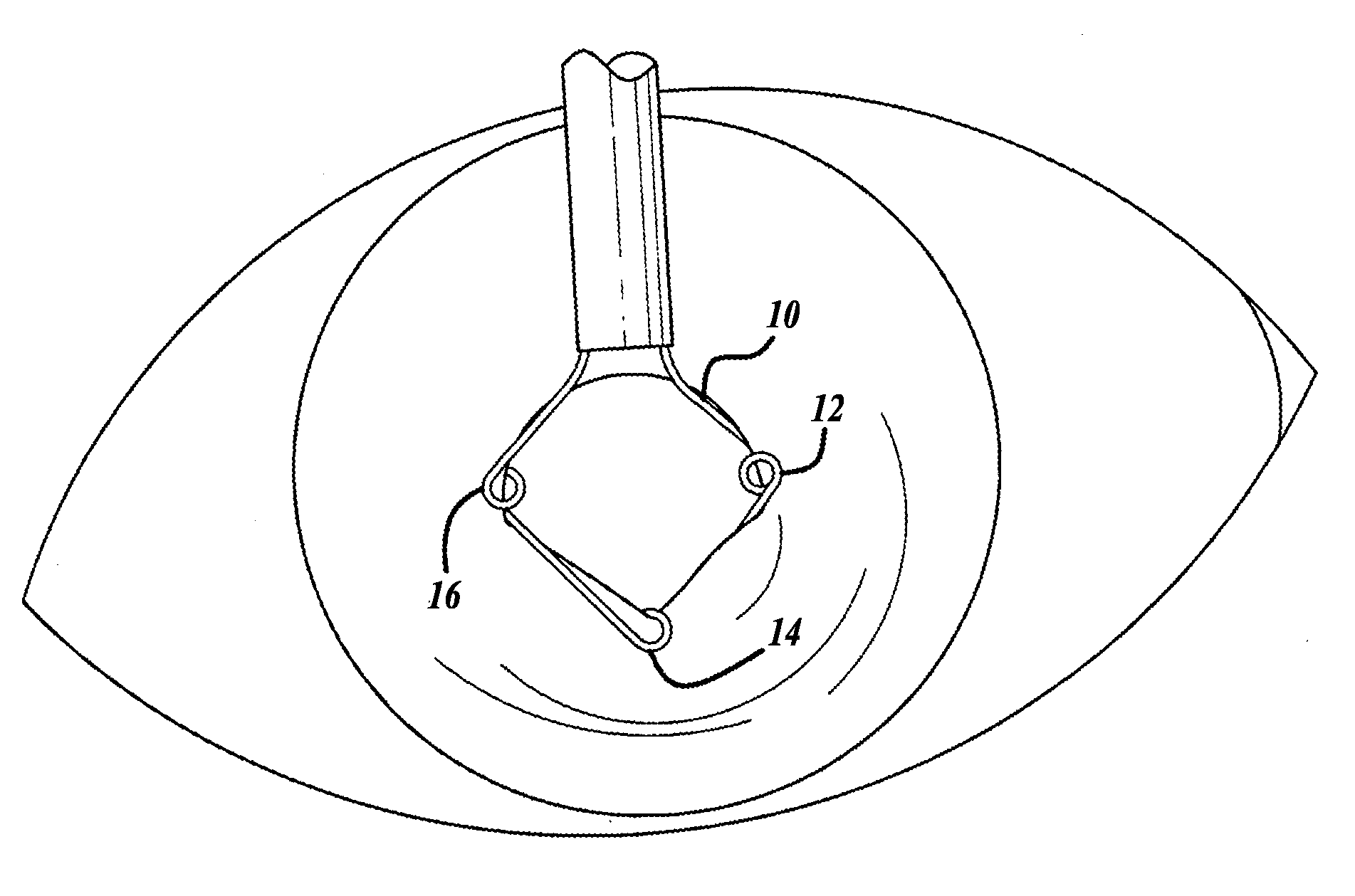 Patent US20120289786 - Extension ring for eyeball tissue - Google ...