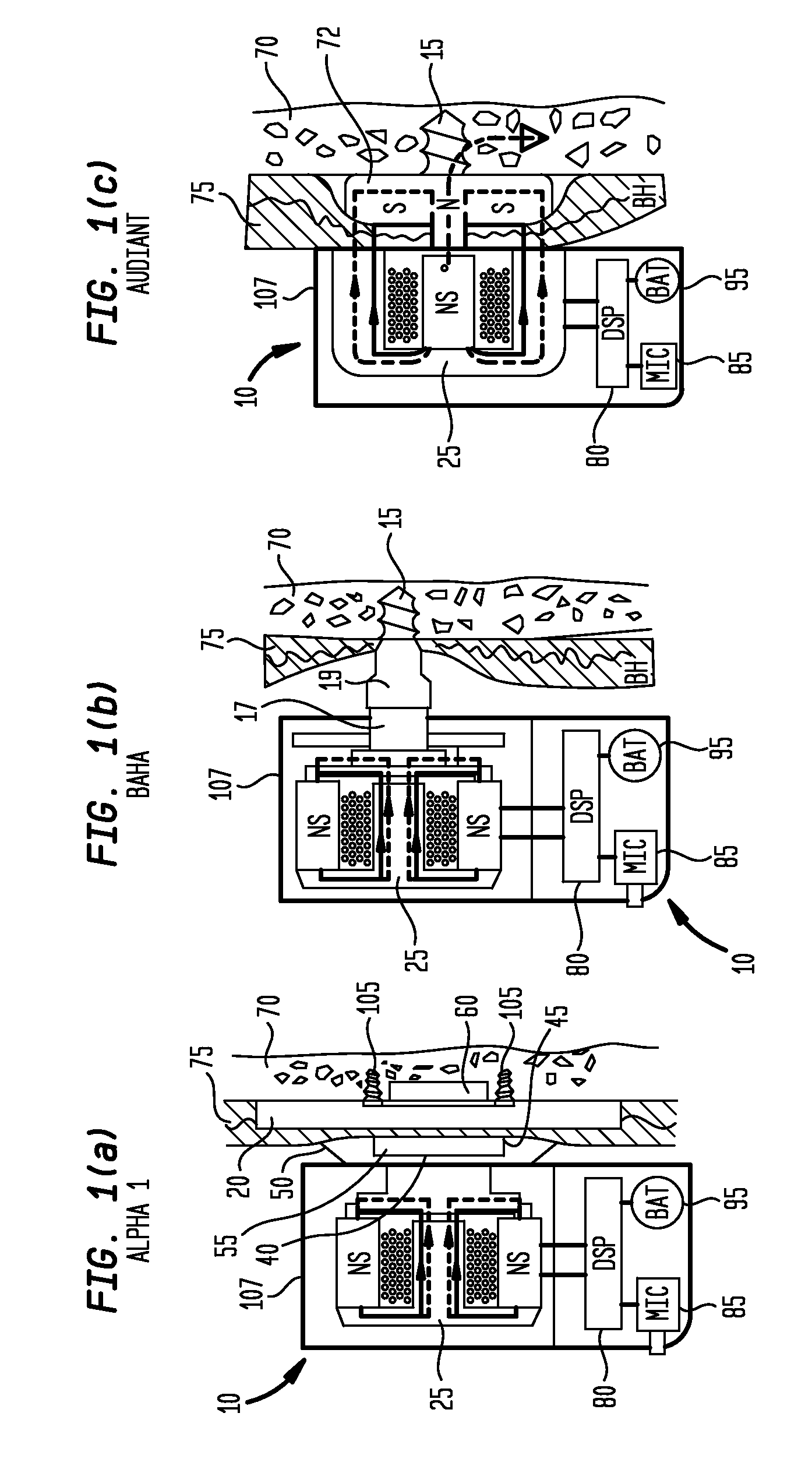 hearing aid wiring diagram hearing aid parts breakdown