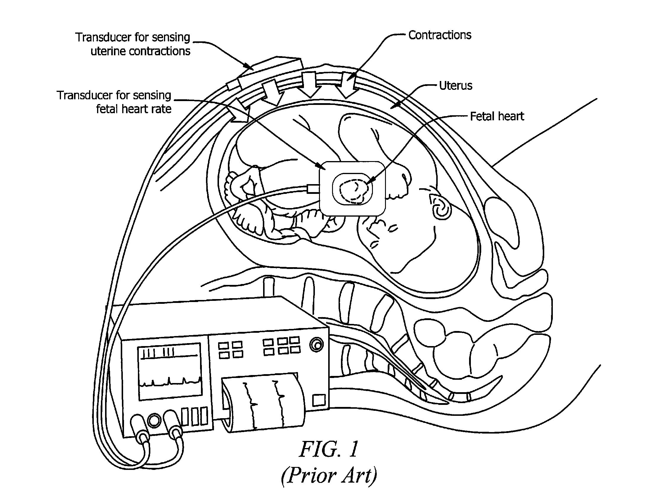 patent us20130018267