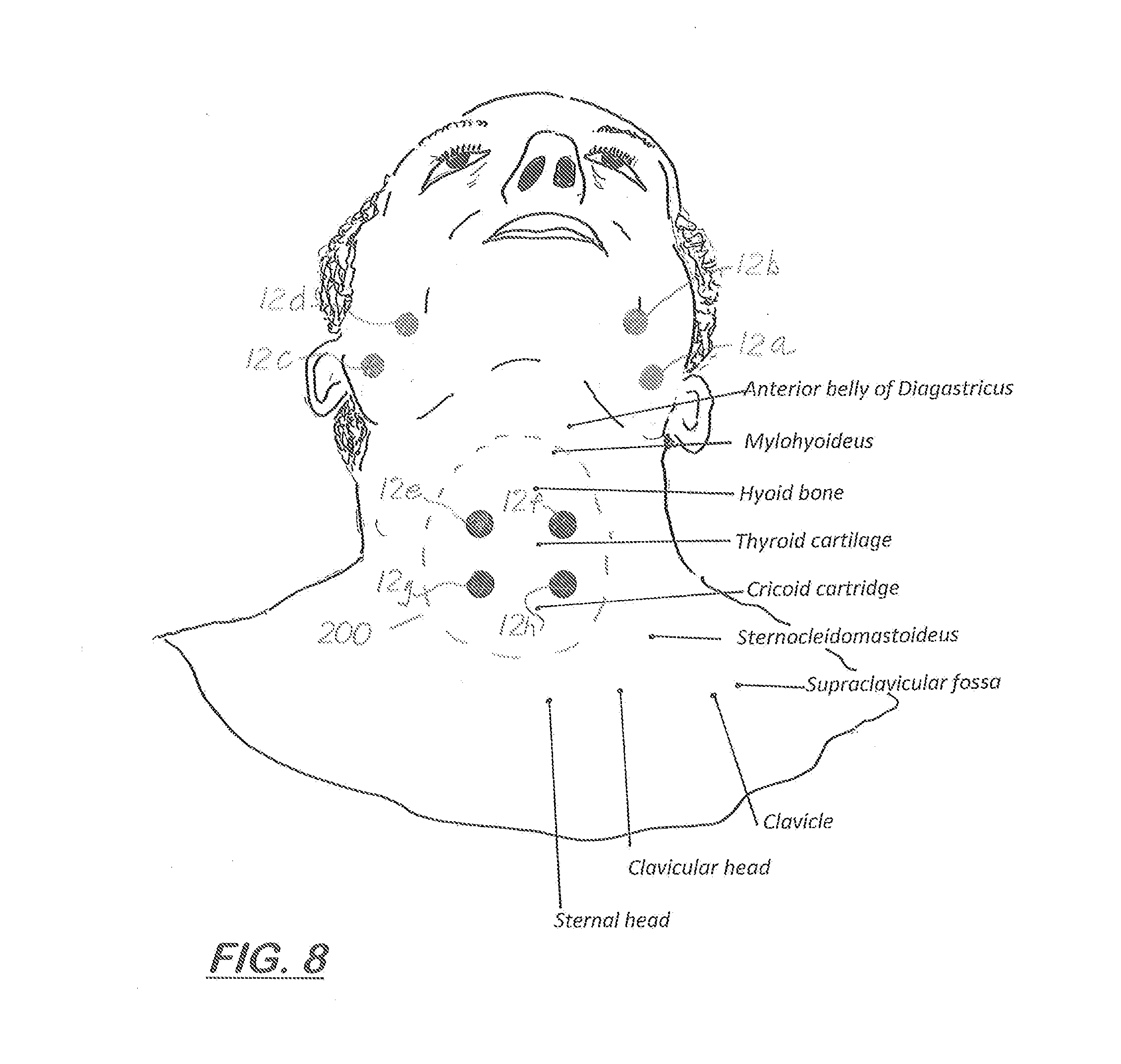 patent us20130023952