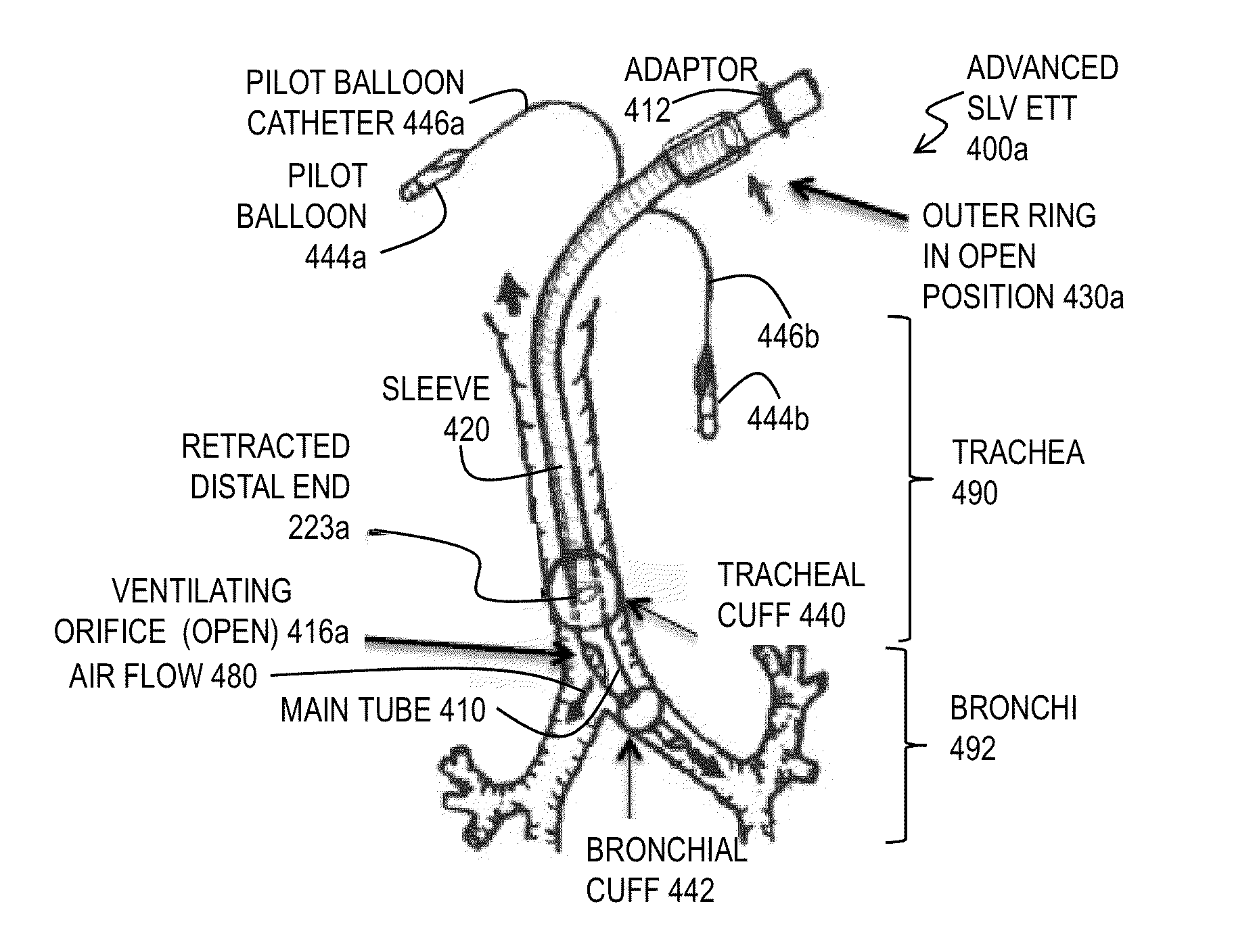et tube diagram