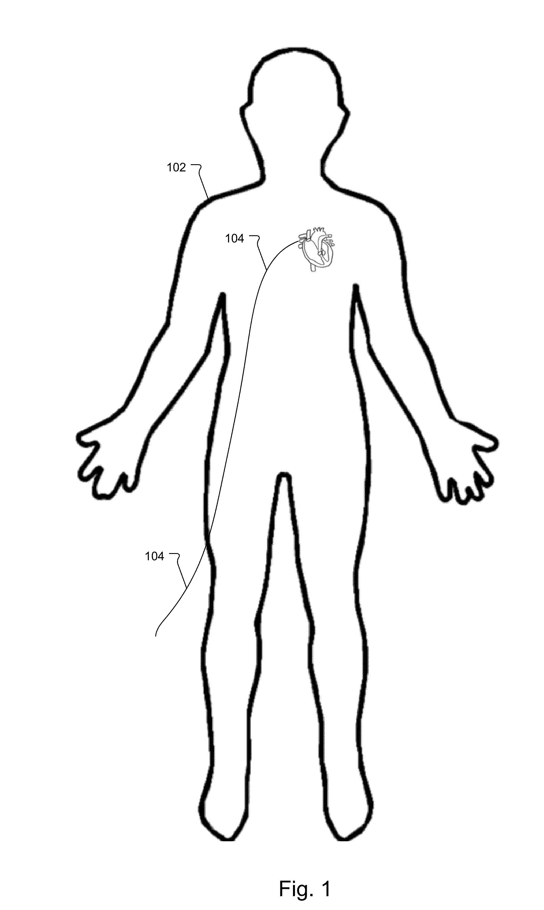 Раскраска голого тела 16 фотография