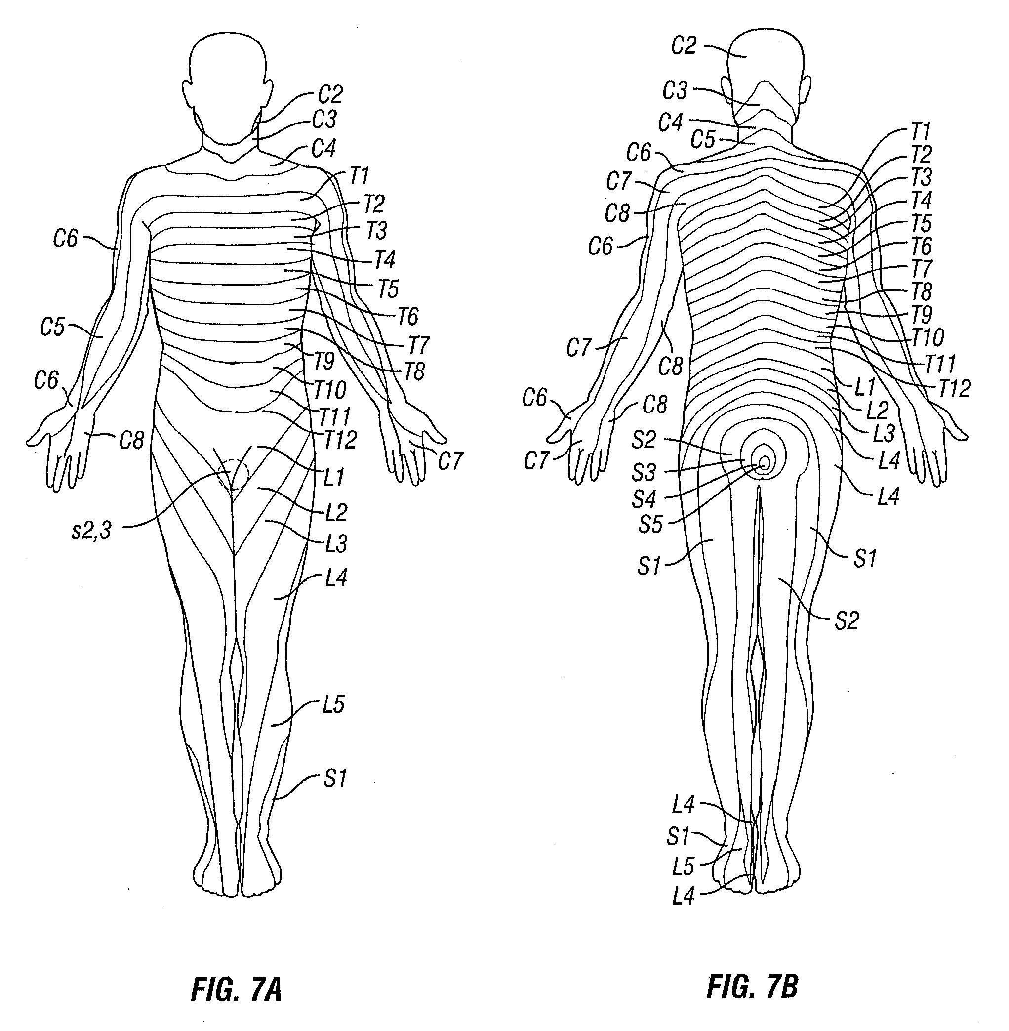 patent us20130238070