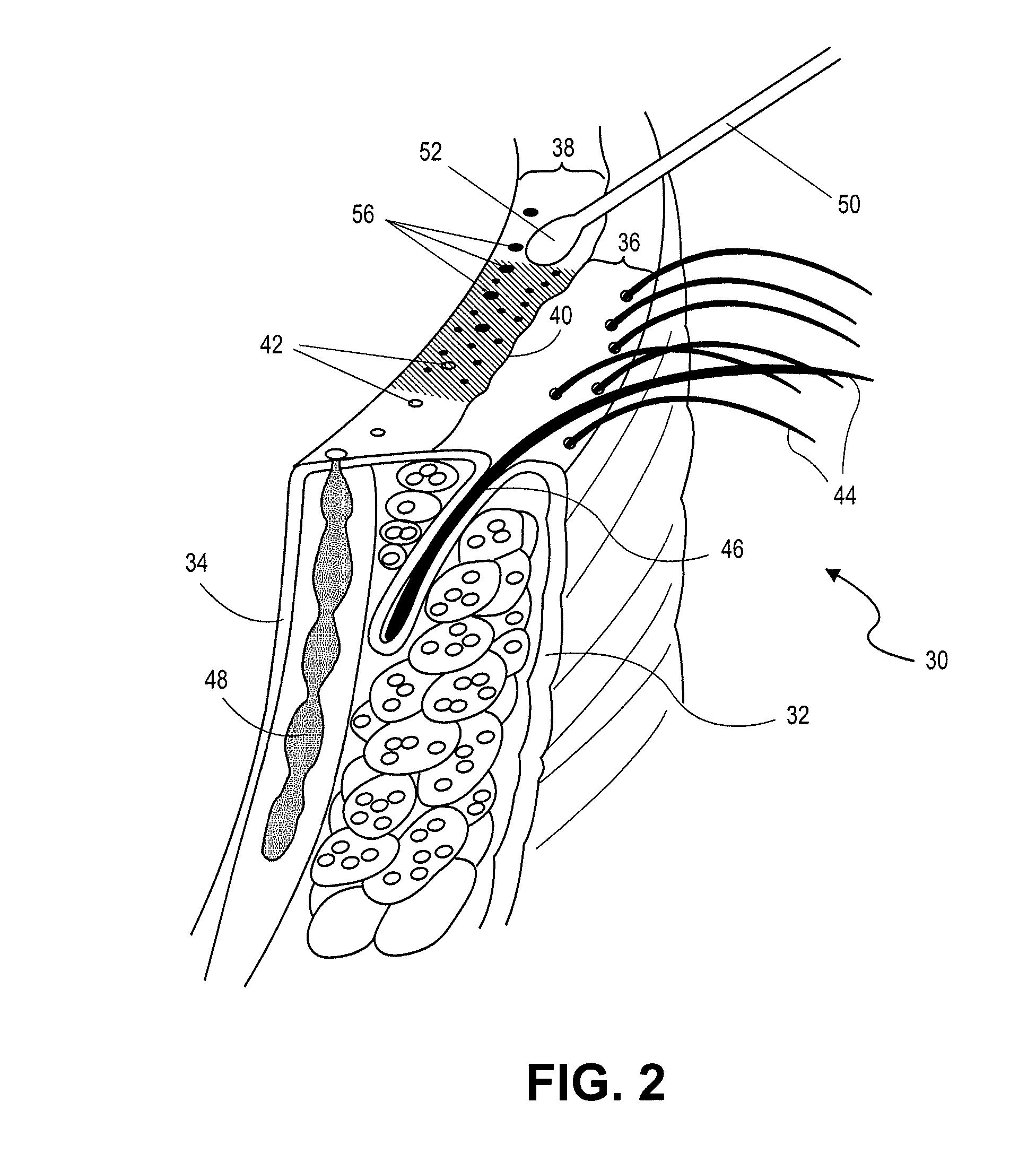 patent us20130331768 eye treatment google patents
