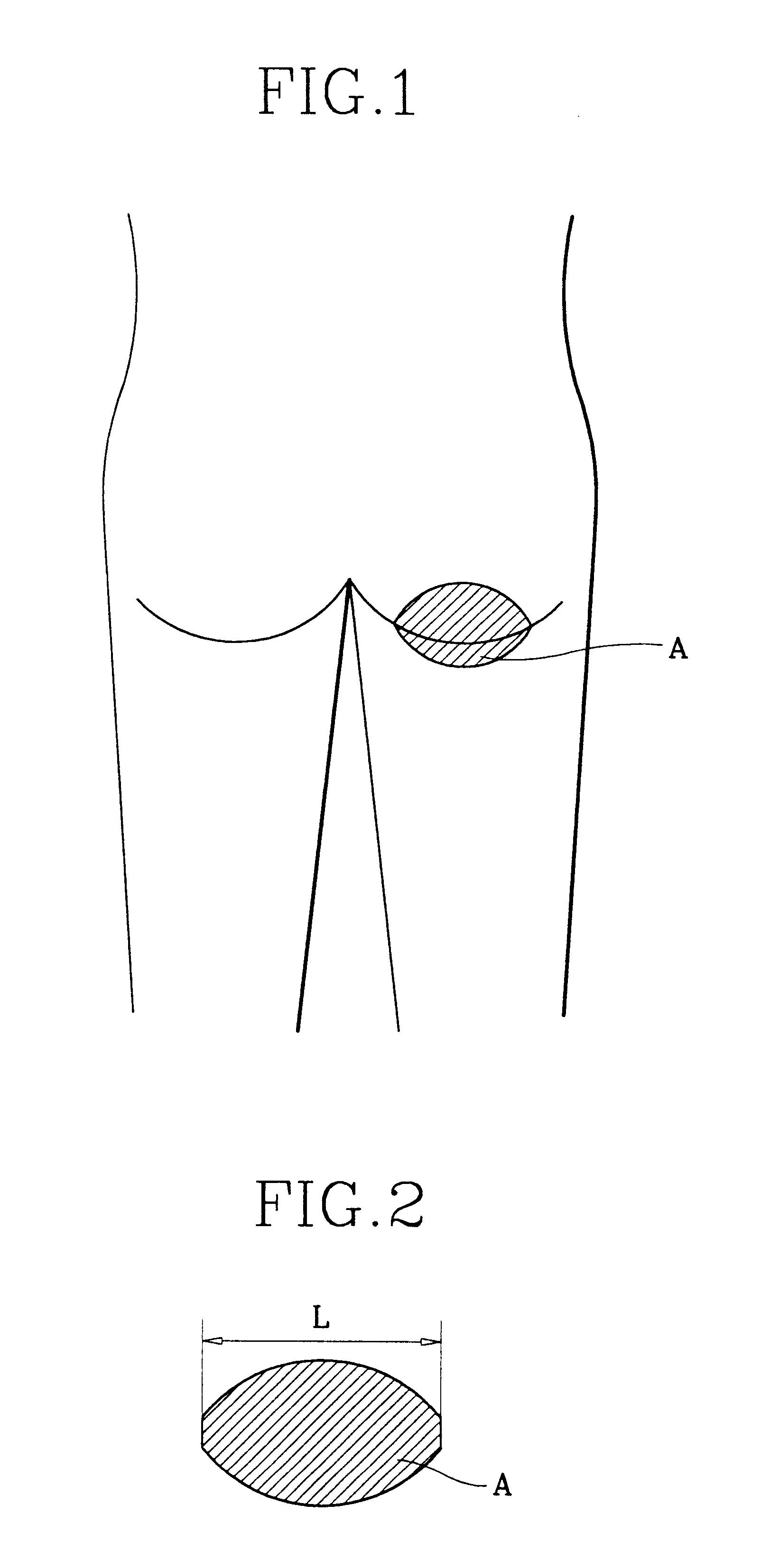 underdeveloped penis