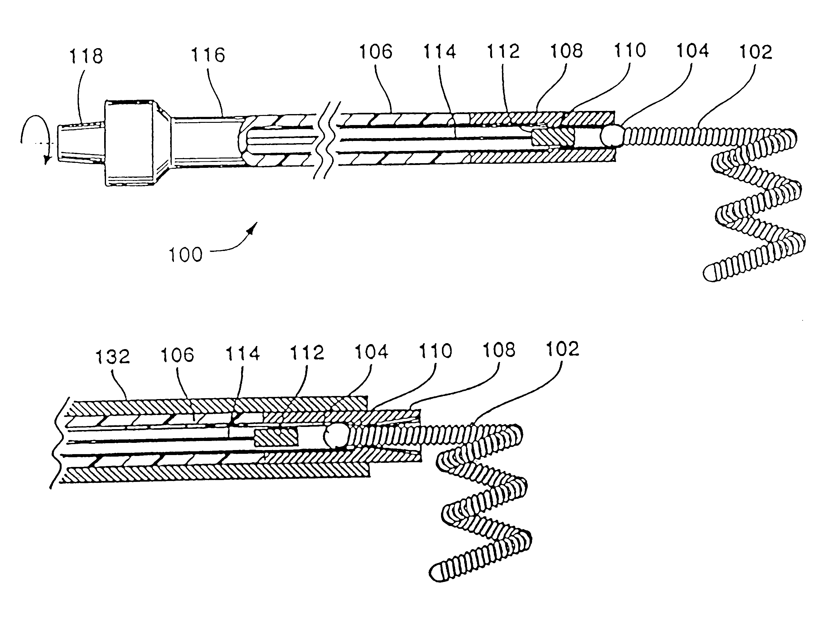 brevet us6190373 axially detachable embolic coil