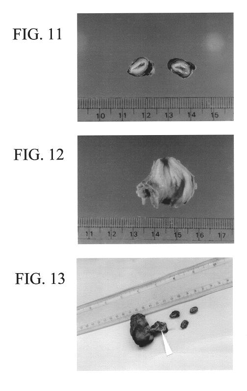 Схема эсуд микас 10. микас 11