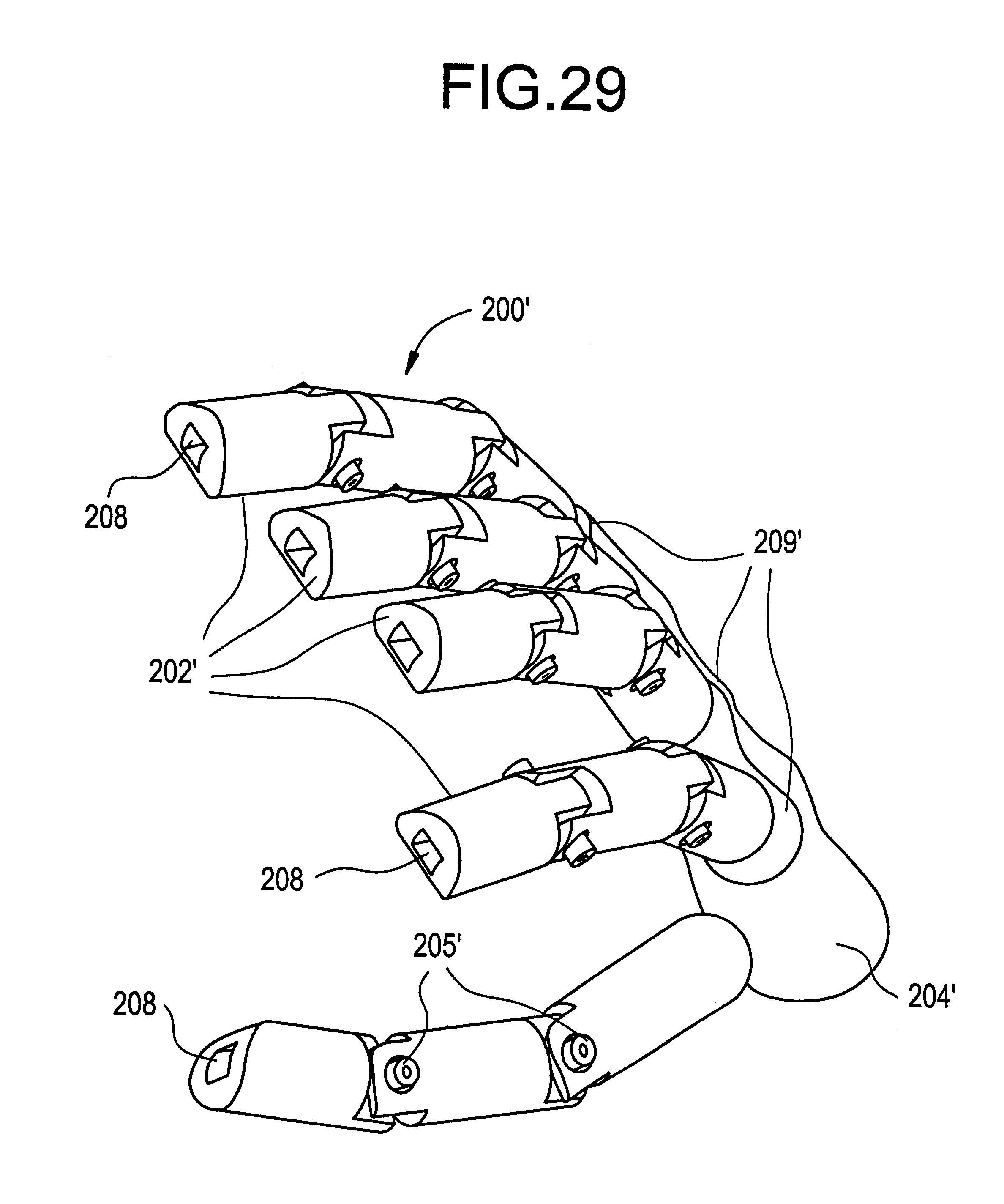 Patent US6379393 Prosthetic orthotic and other rehabilitative