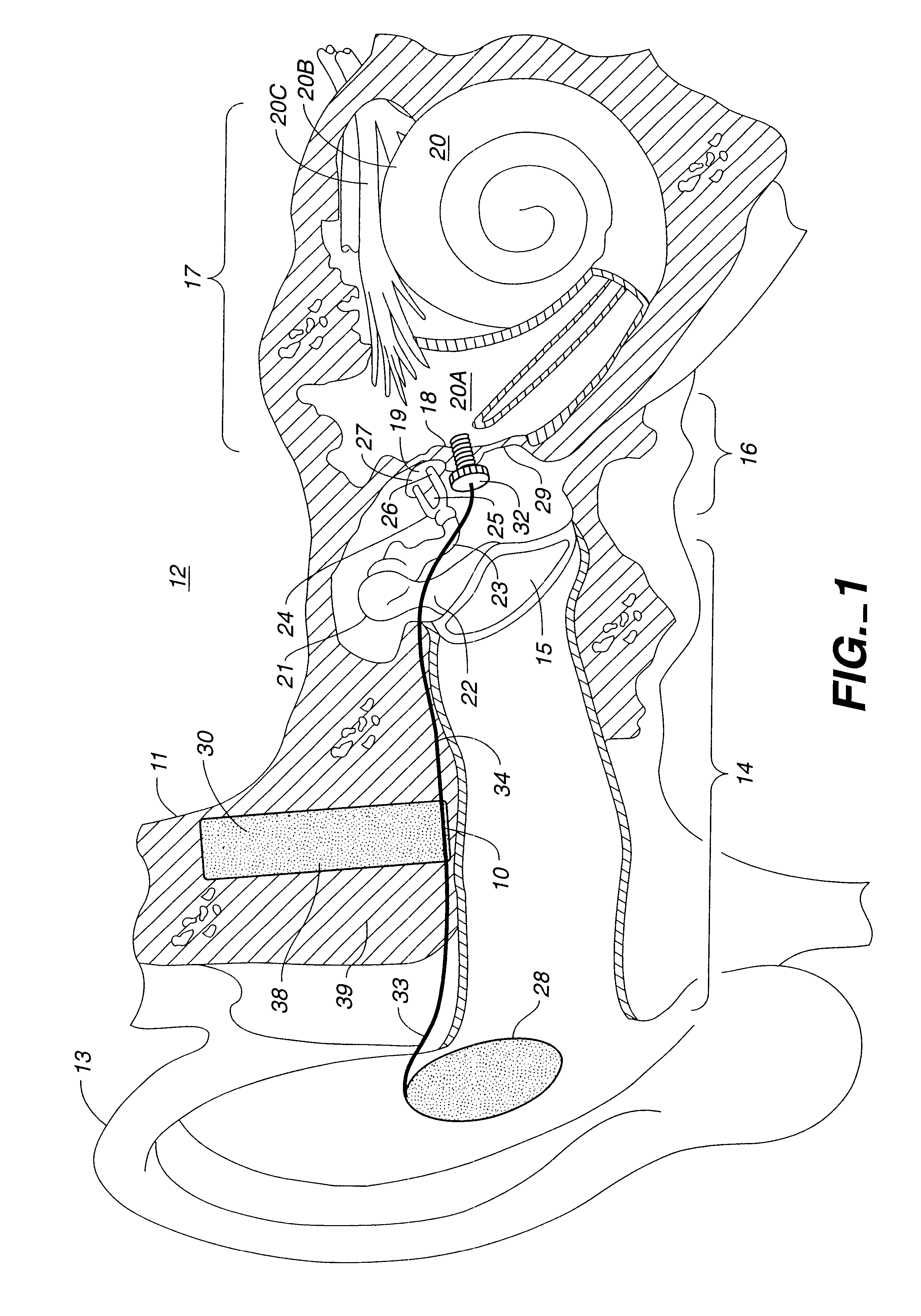 patent us6381336