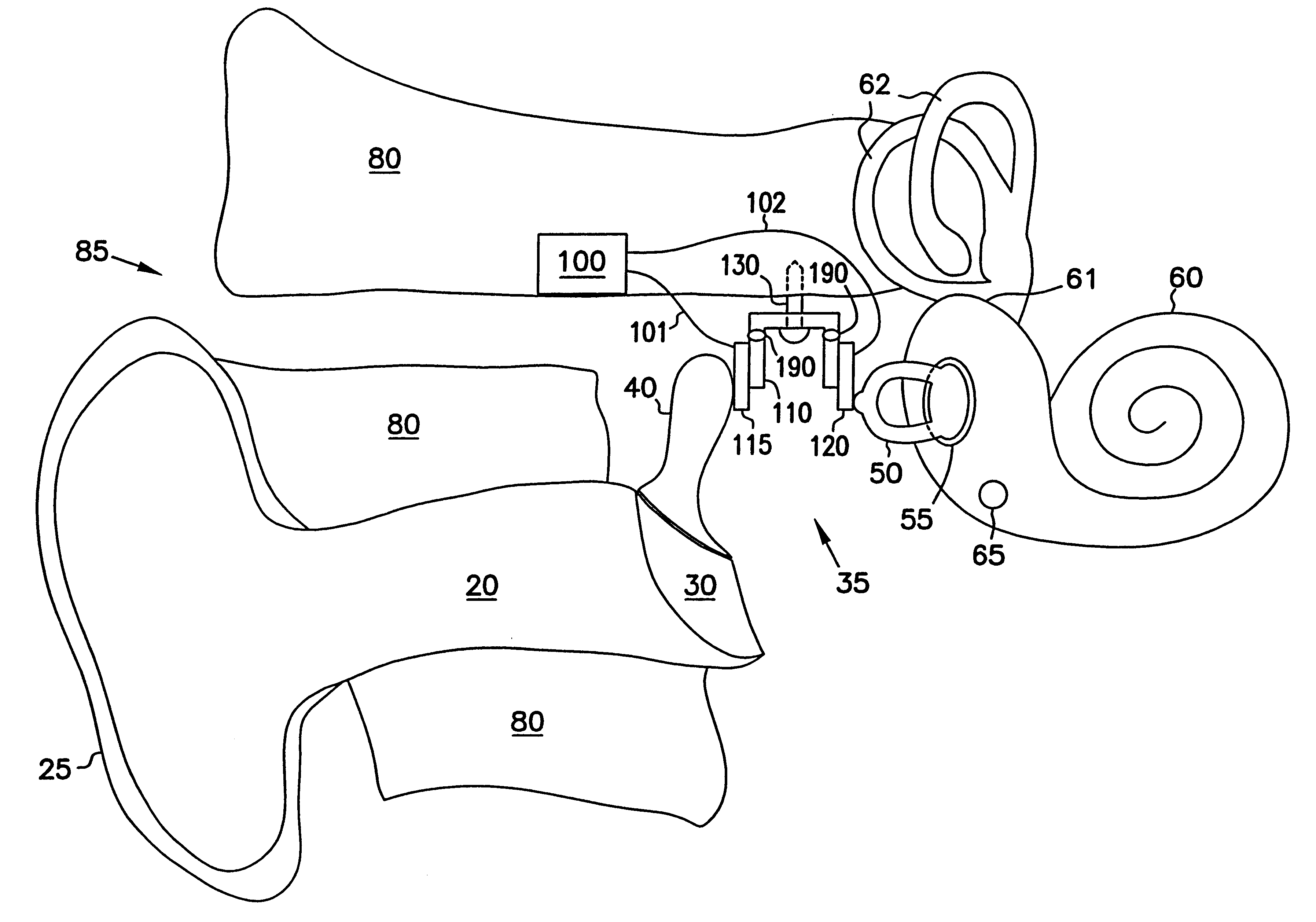 patent us6488616 - hearing aid transducer support