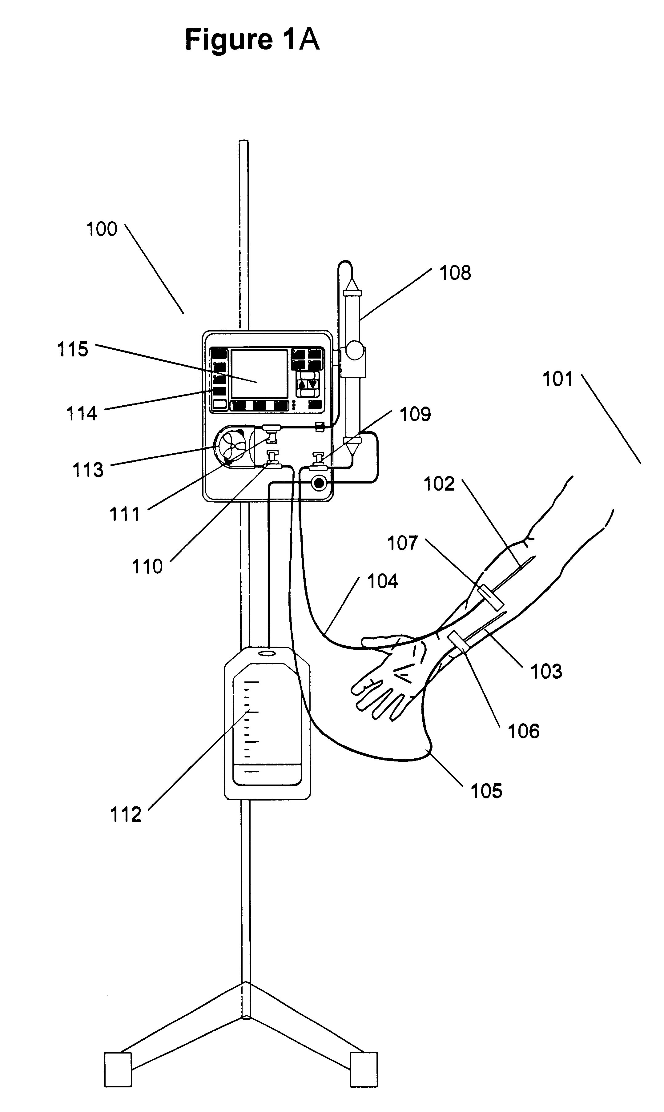 US06533747 20030318 D00001 patent us6533747 extracorporeal circuit for peripheral vein  at crackthecode.co