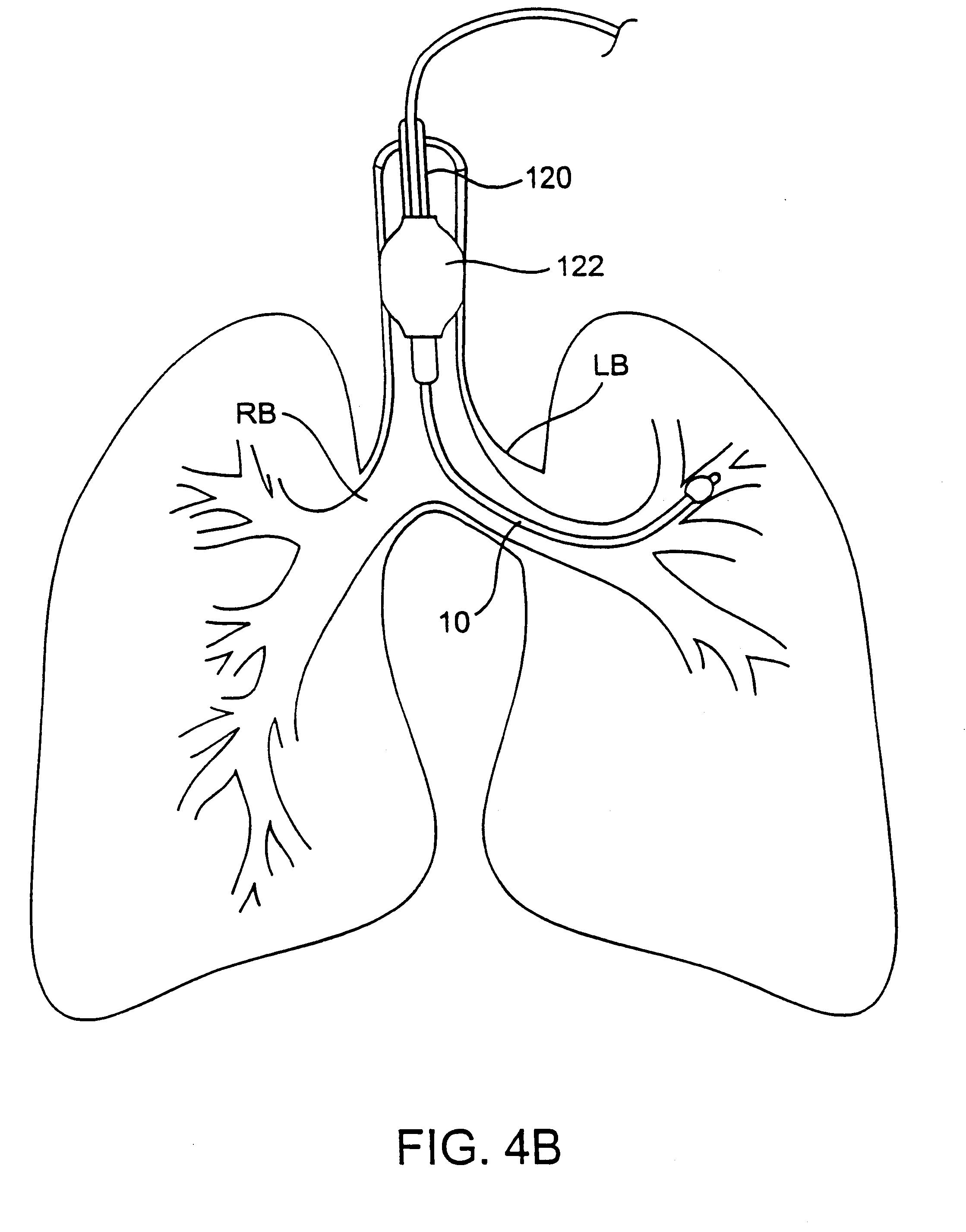 possible causes of reduction in air flow to the lungs The treatment of chronic diseases demands a long-term and systematic  approach care for patients with  table 2 common chronic respiratory diseases  continued on  with airway hyper-responsiveness and variable airflow  obstruction, that is  decline in lung function (101) and a reduced response to  corticosteroid.