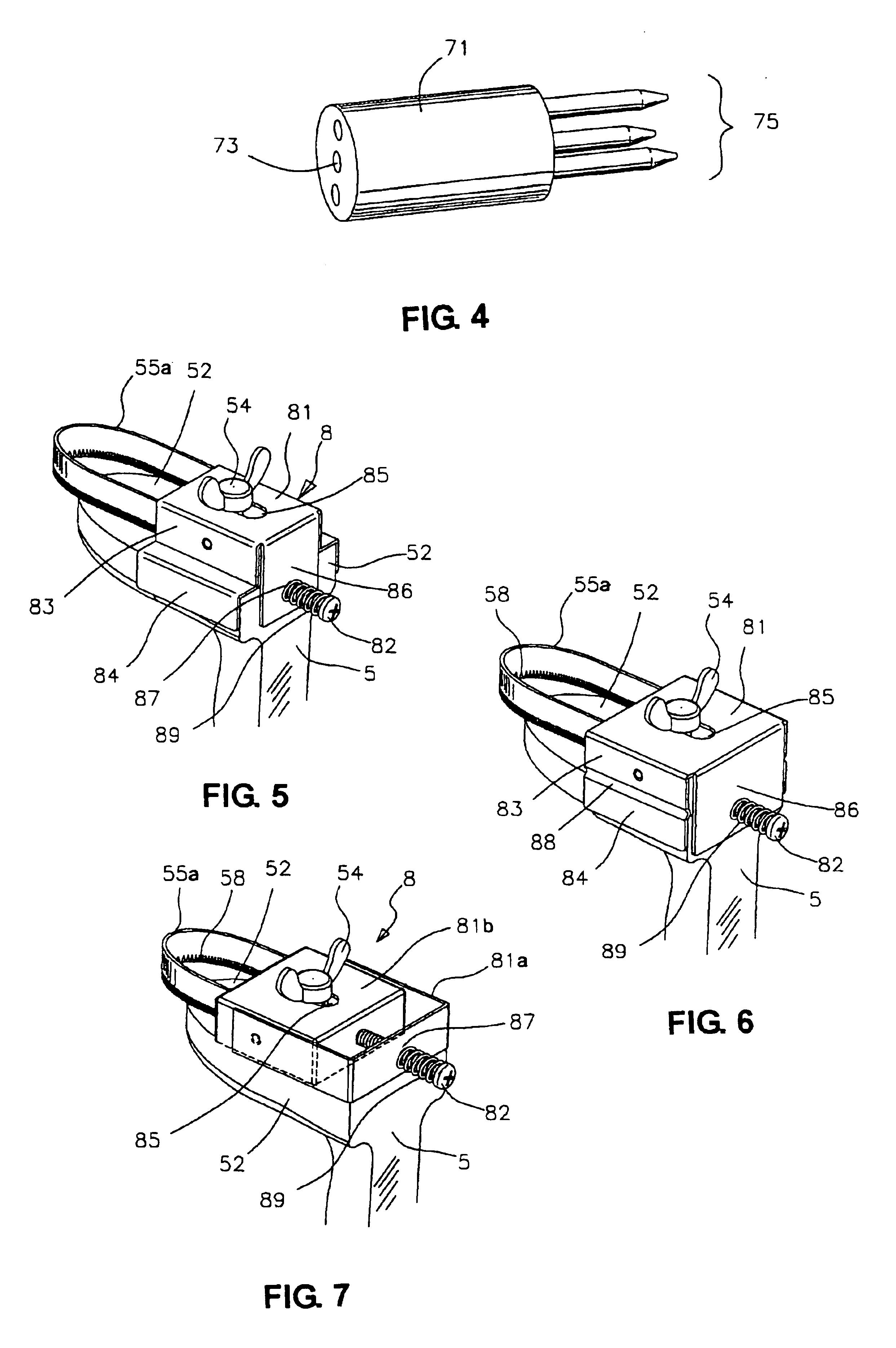 Fruit Peeler Drawing Patent Drawing
