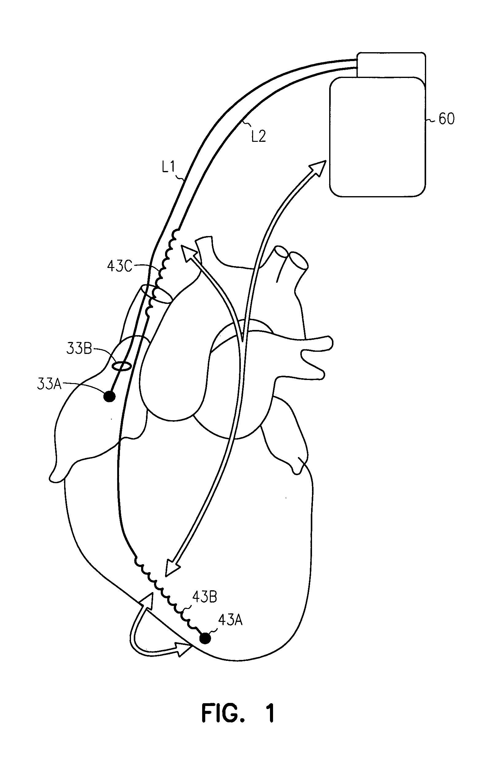 patent us7110811   method and apparatus for atrial